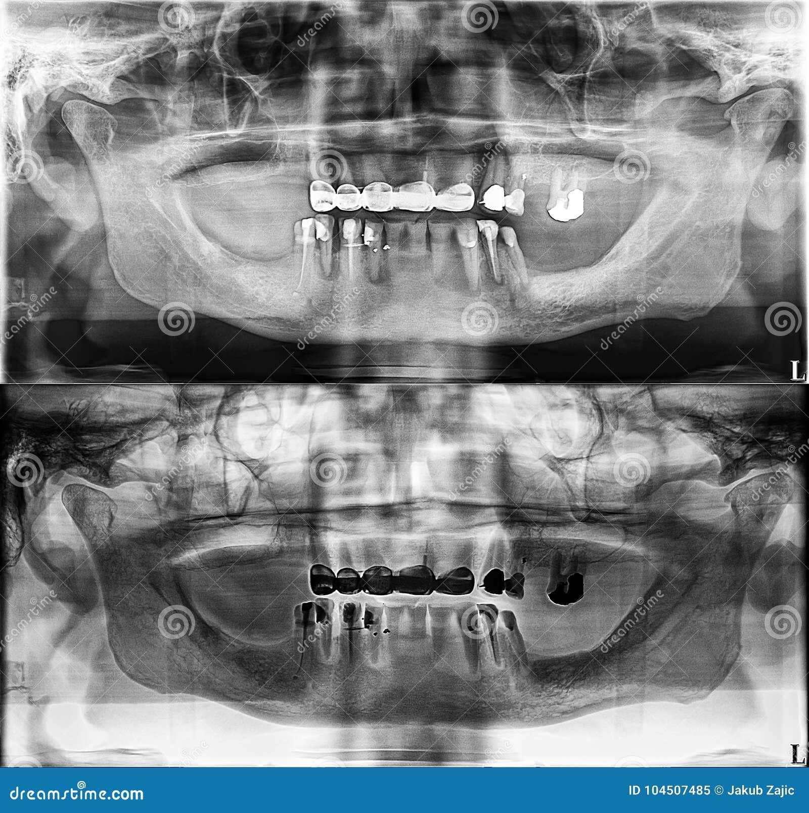 Radiografía Dental Panorámica, Dientes Fijos, Sello De La Amalgama ...