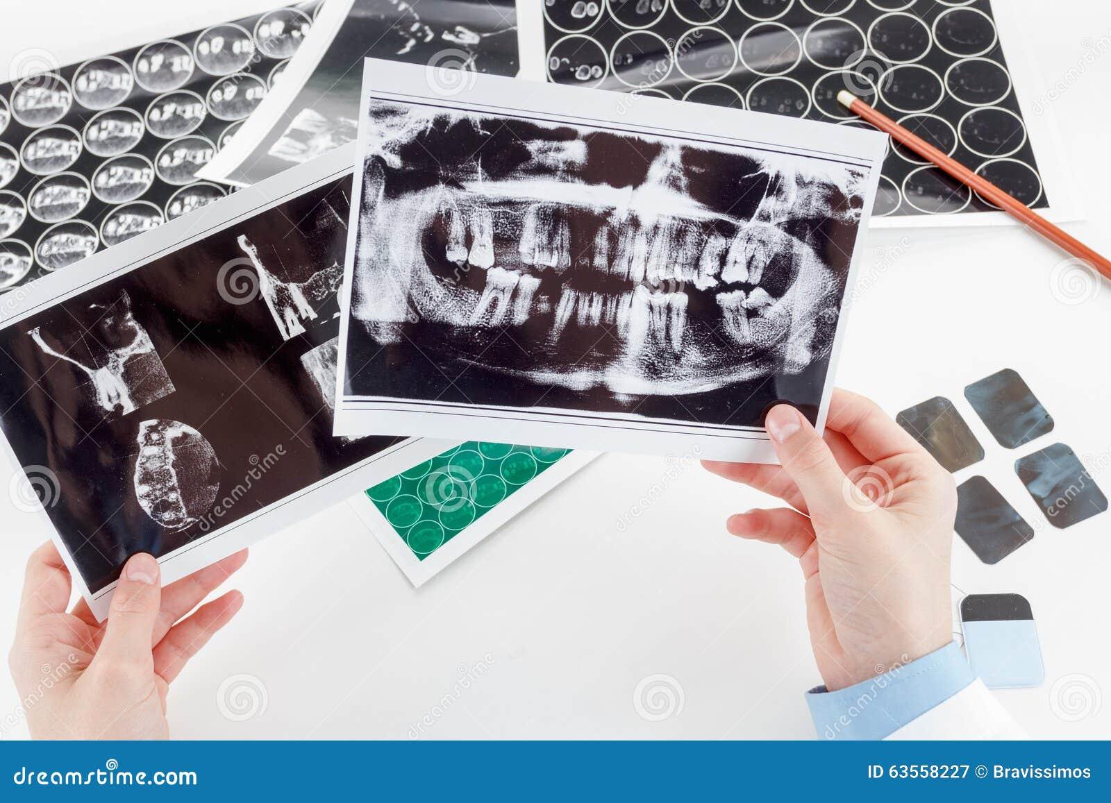 Radiografía Dental Panorámica A Disposición Imagen de archivo ...