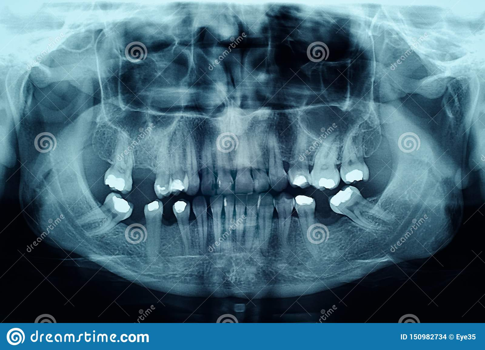 Radiografía dental que muestra rellenos en los dientes