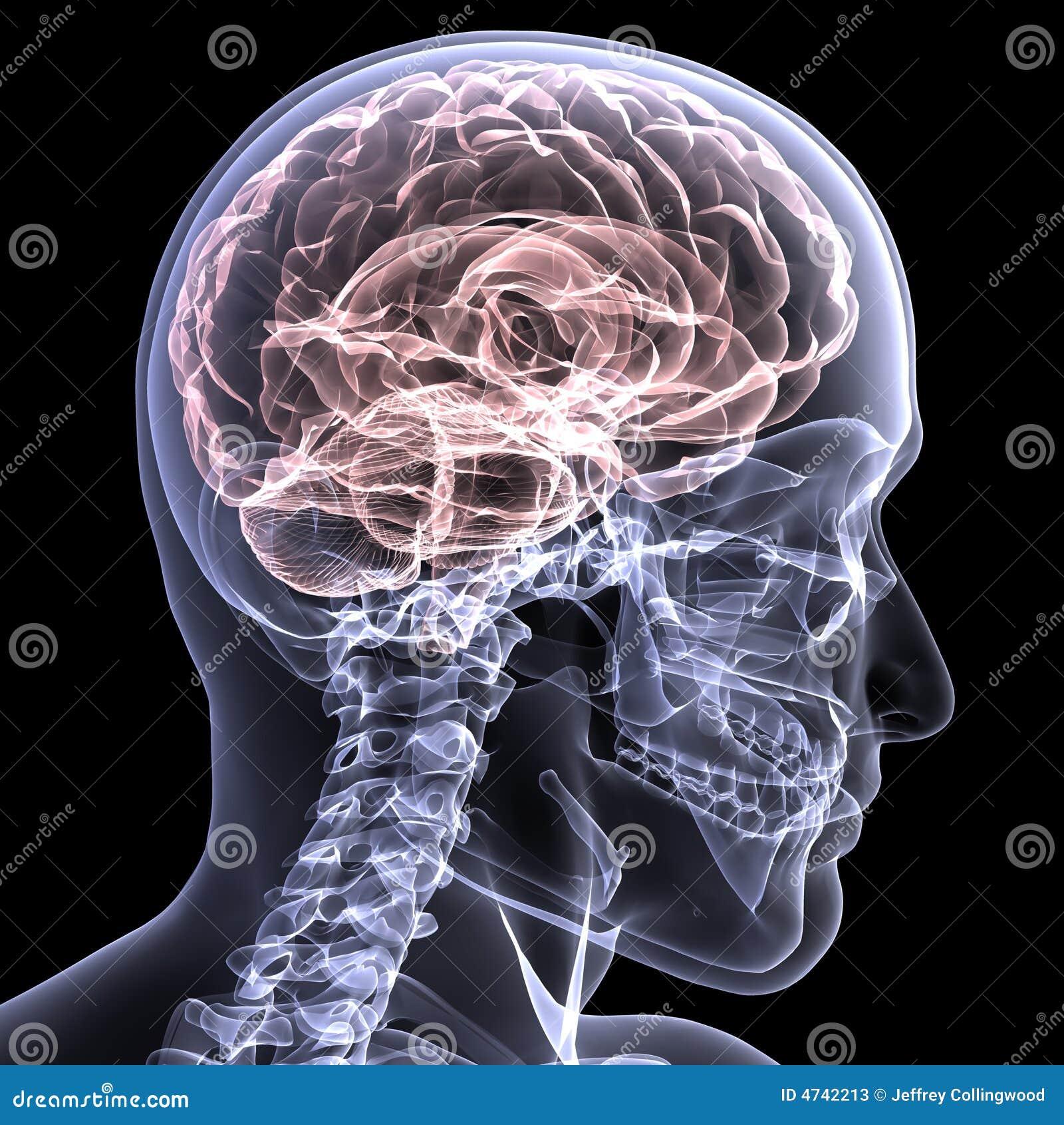 Radiografía esquelética - cerebro 1
