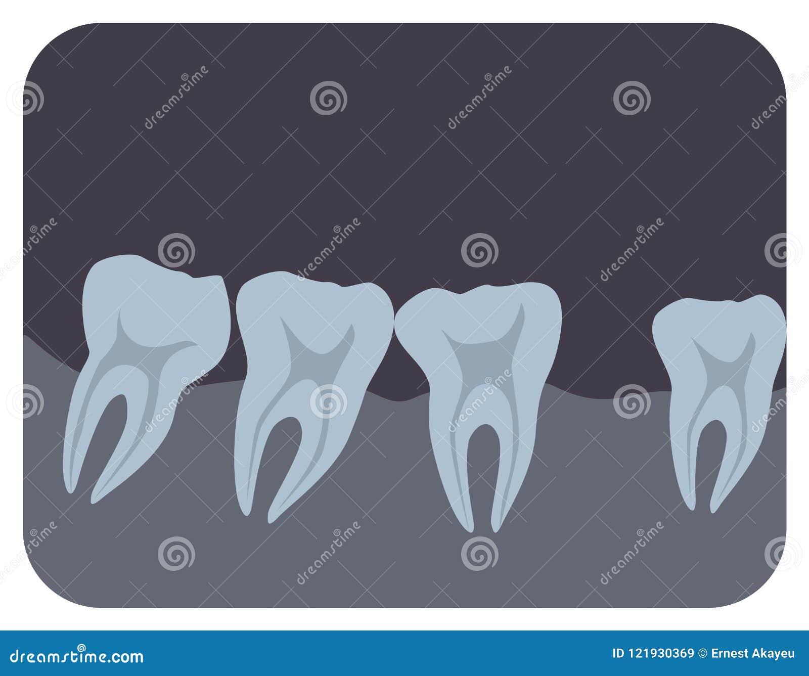 Radiografía Intraoral De Dientes Y Del Gingiva Humanos Imagen Dental ...