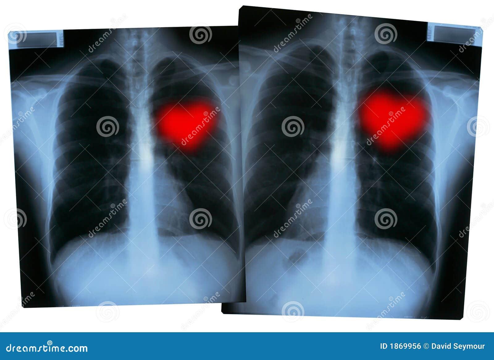 Radiografías De Las Tarjetas Del Día De San Valentín - Corazones Del ...