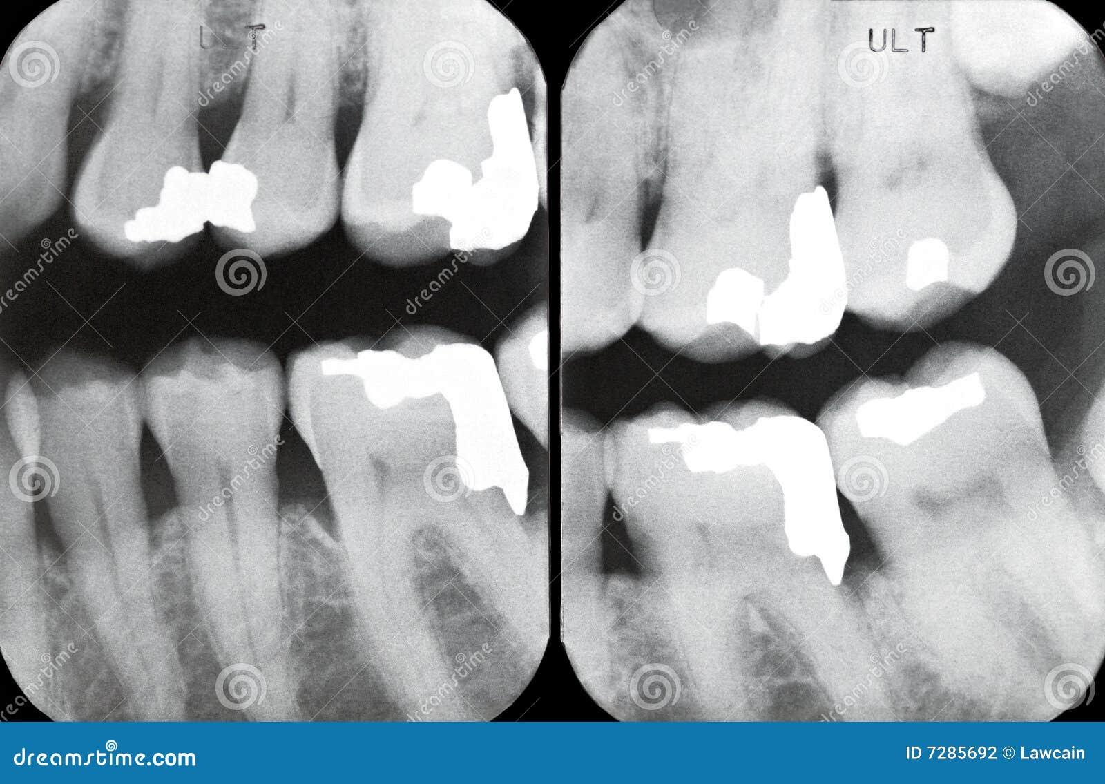 Radiografías periodontales correctas