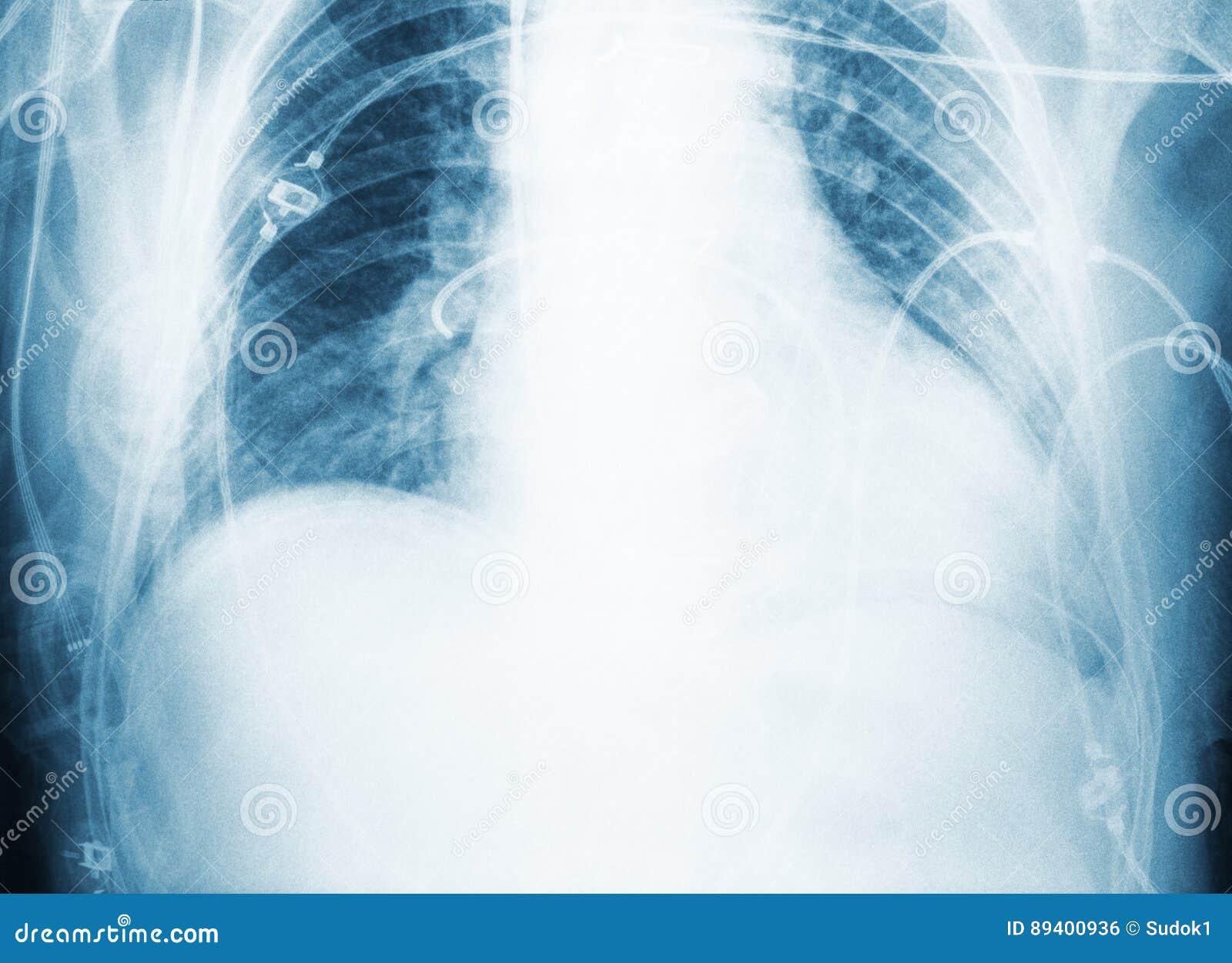 Radiografe a varredura da caixa paciente do ` s após a cirurgia