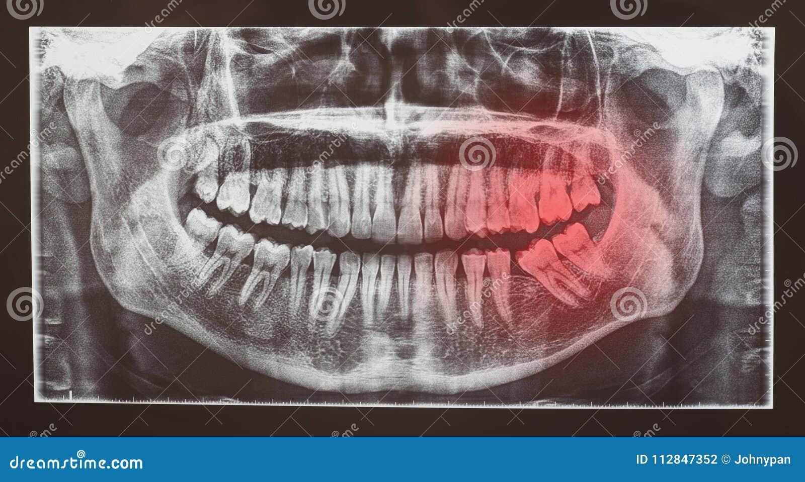 Radiografia medica o radiologia dell esame dentario dei denti