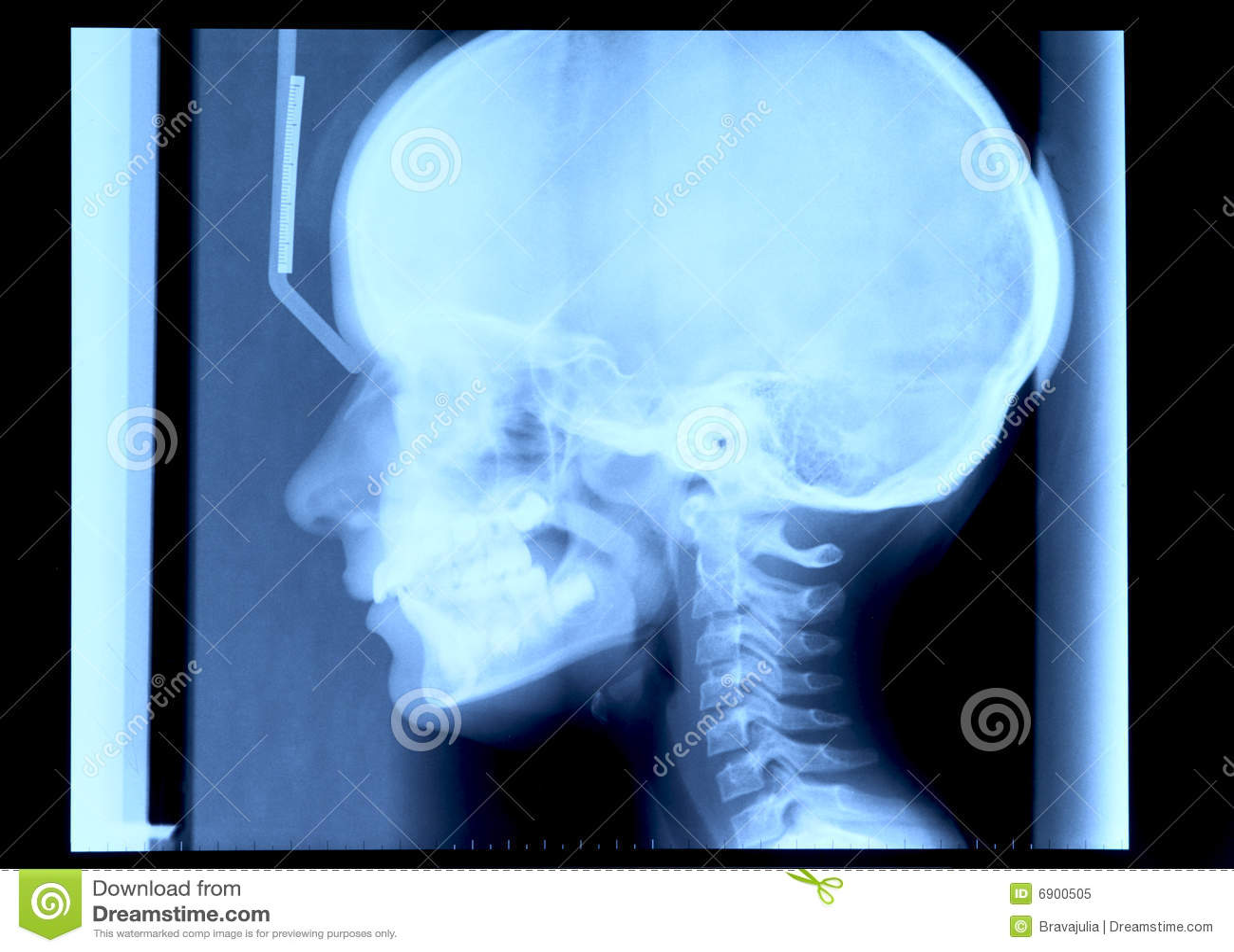 Radiografie van schedel