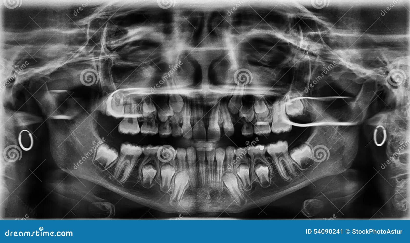 Radiografietanden