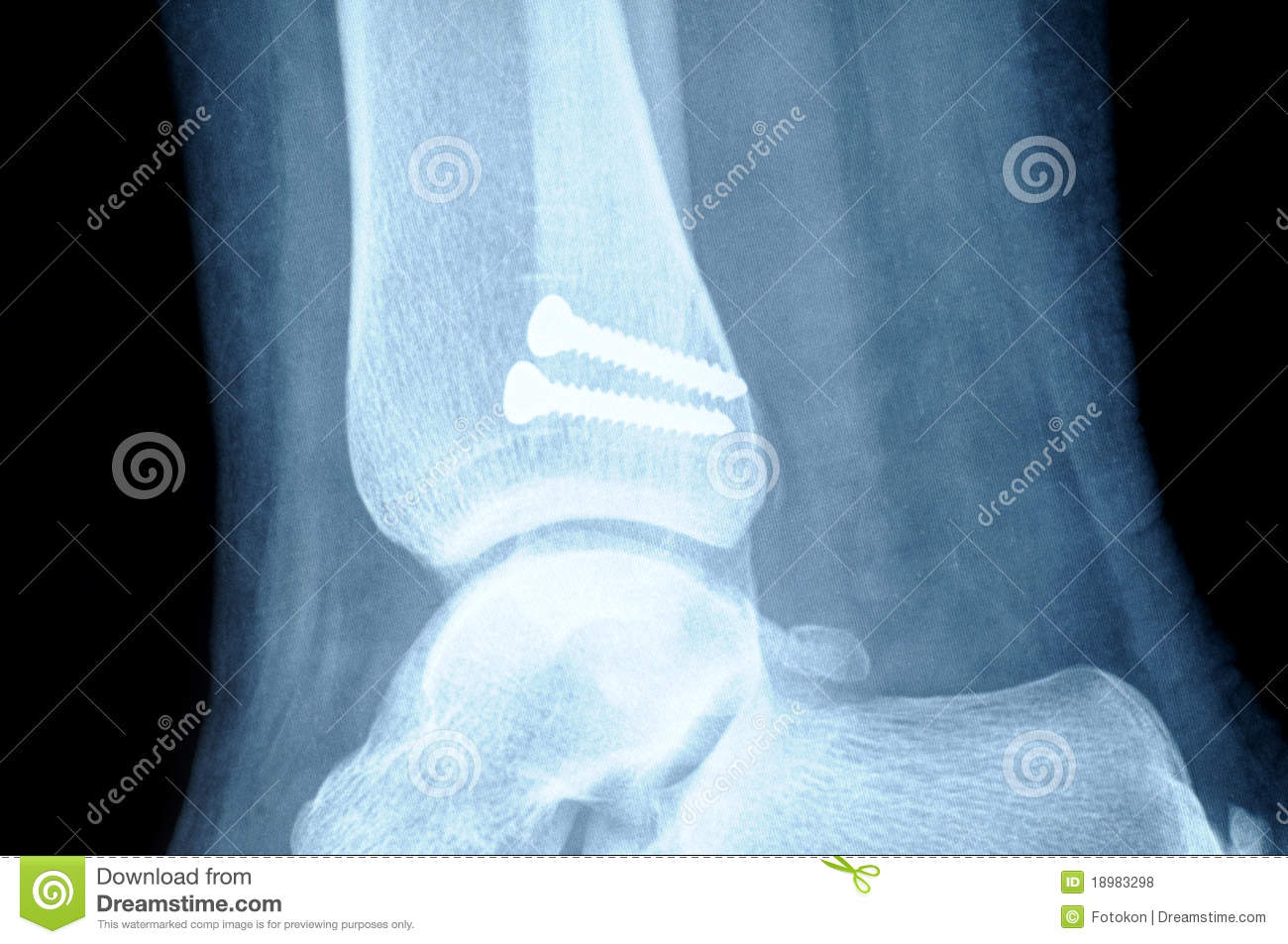 Radiograph Of Human Fracture Fibula Bone Royalty Free Stock Photos ...