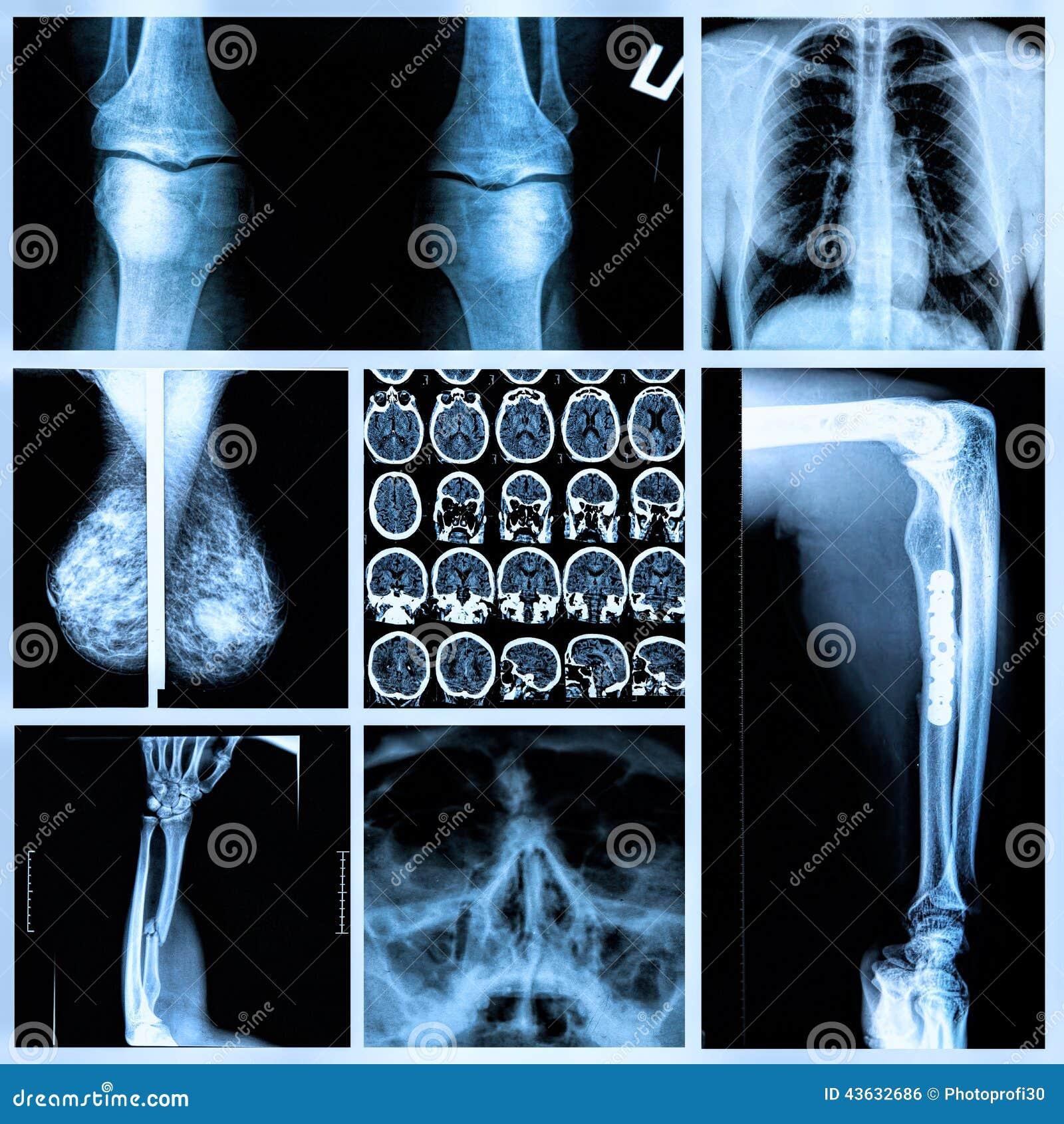 Radiographie der menschlichen Knochen