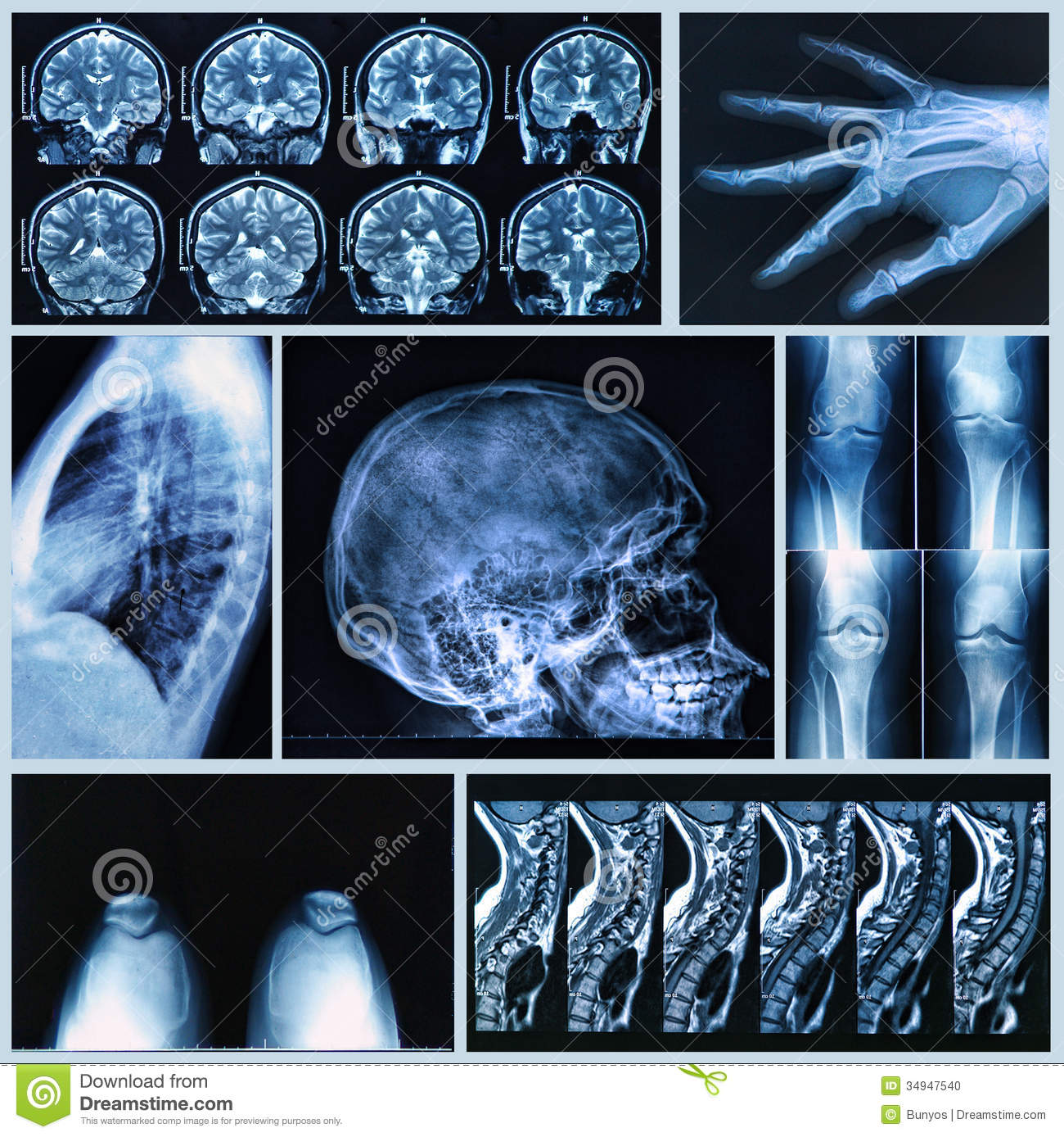 N Ray Radiography Radiography Of Human B...
