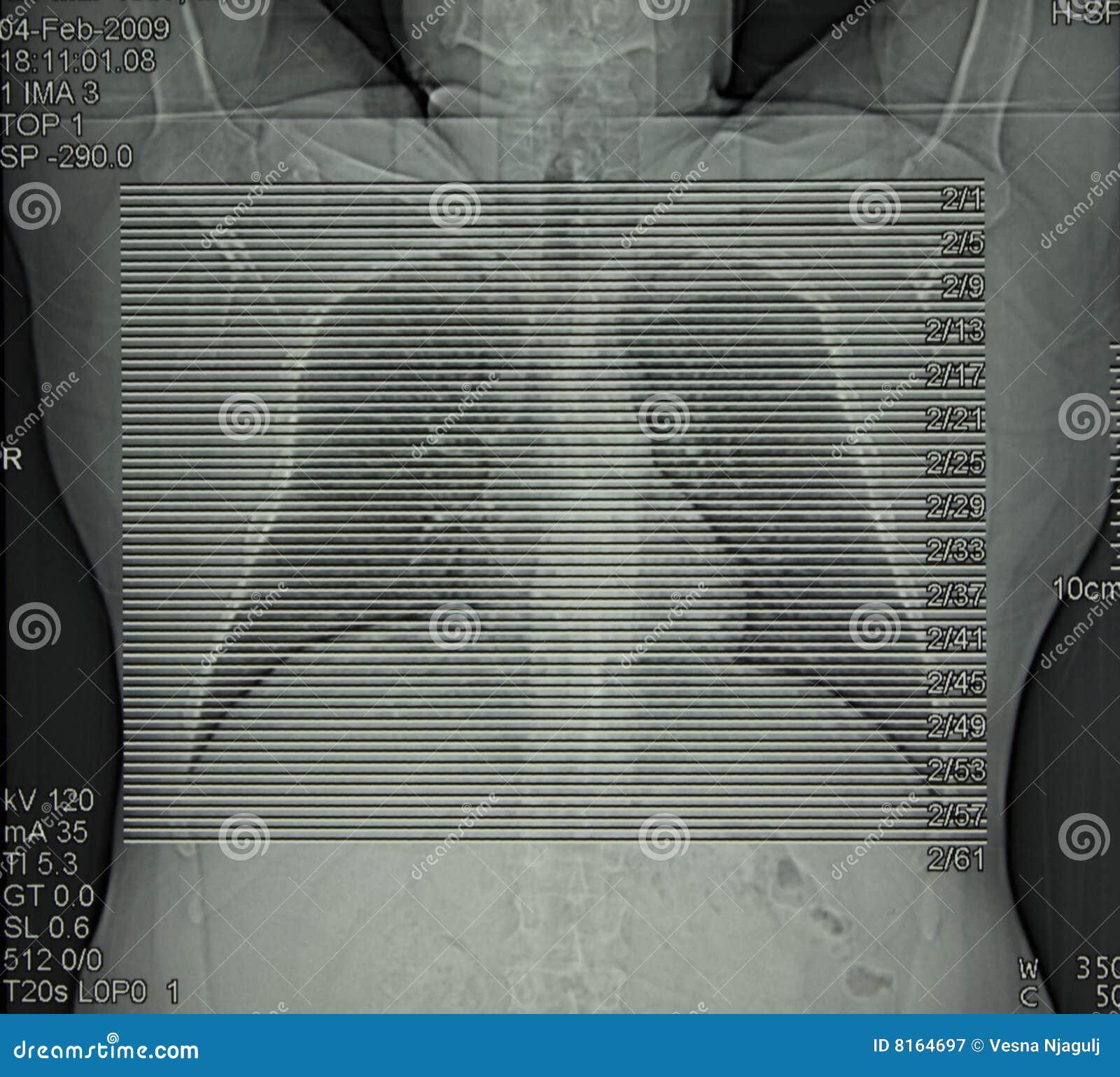 Radiologia, tomografia computata della cassa