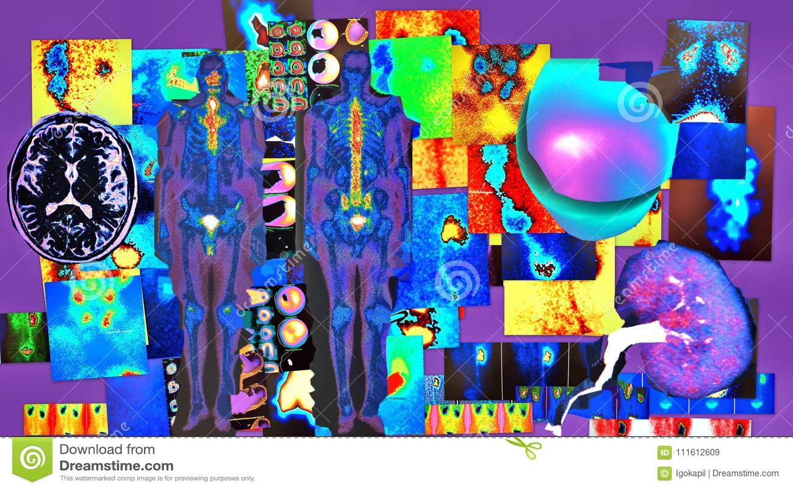 Radiological diagnostic violet color elements