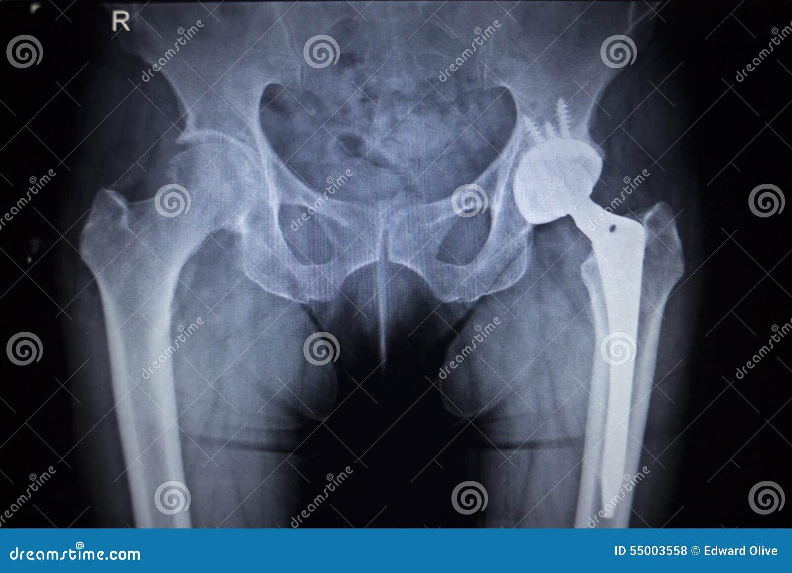 Radiologiczny obrazu cyfrowego wizerunek modnego złącza zastępstwa ortopedyczny wszczep