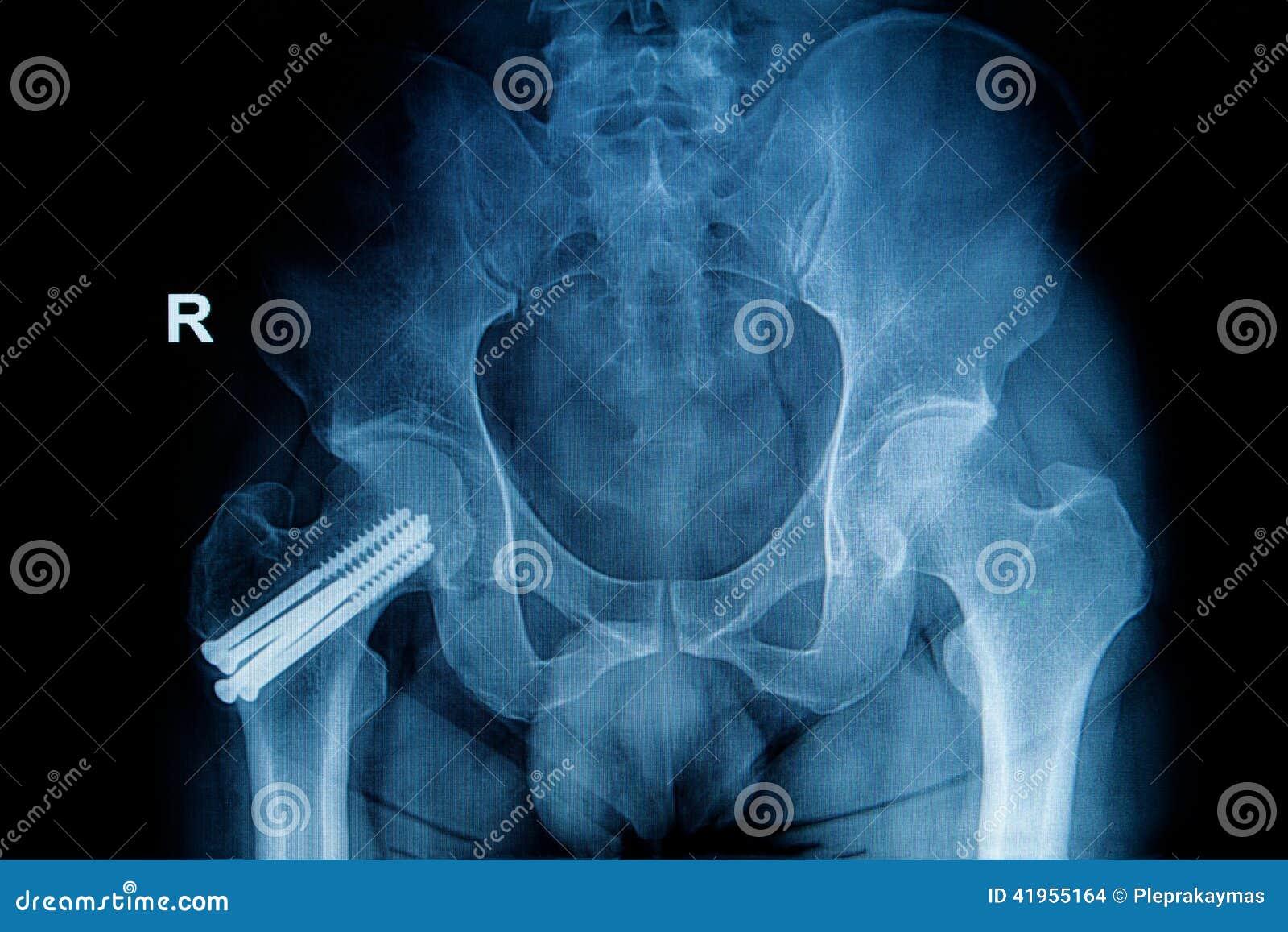Radiologiczny wizerunek przełam noga (głowa femur)