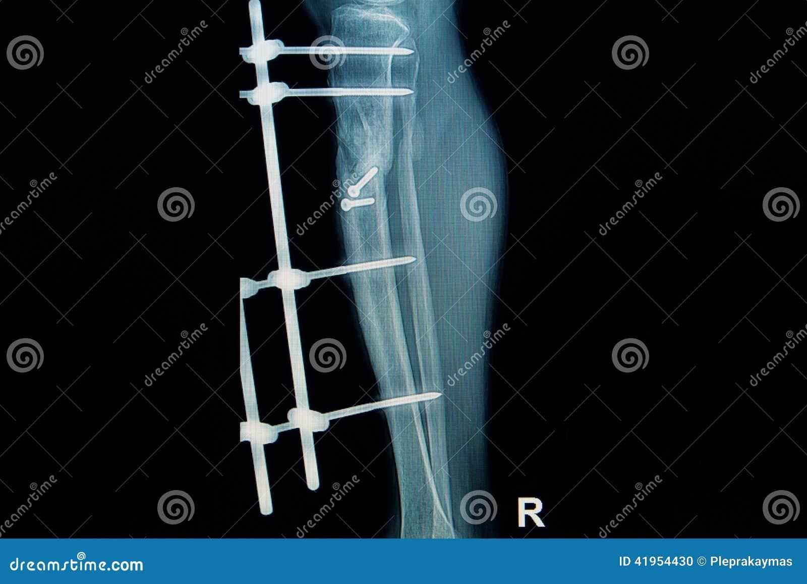 Radiologiczny wizerunek przełam noga z wszczepem (piszczel)
