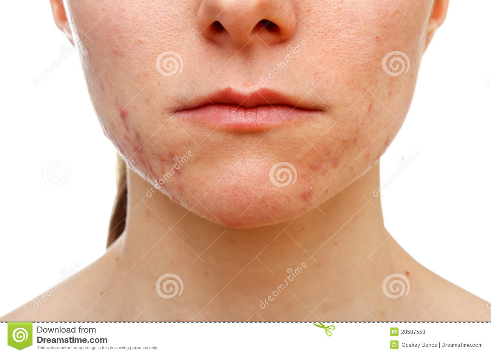 Vitamine da posti e punti neri su una faccia