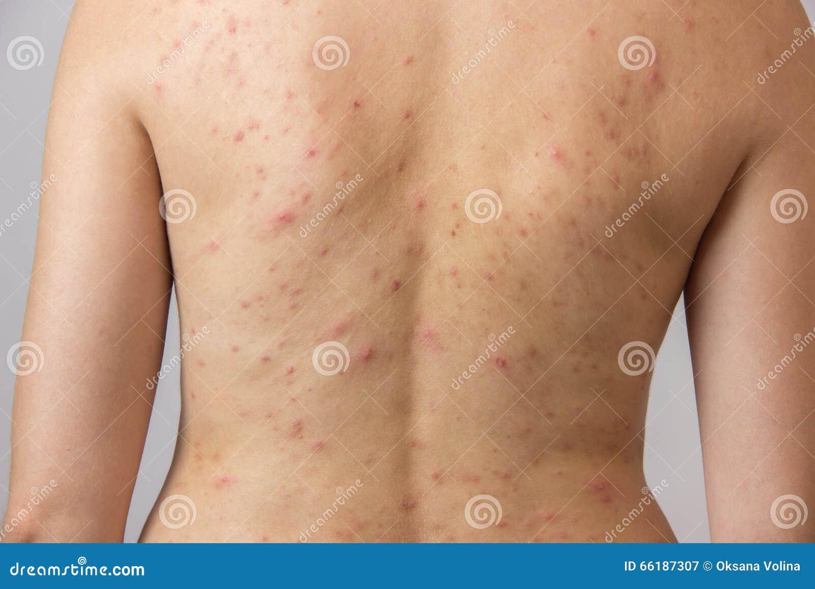 Ragazza con acne, con i punti rossi e bianchi sulla parte posteriore