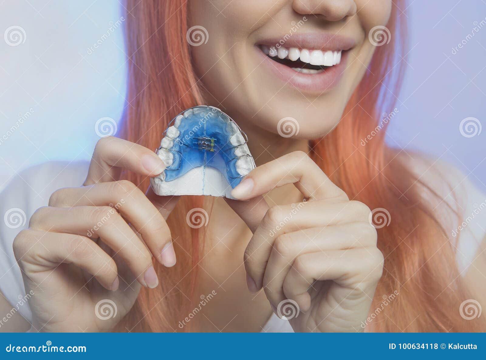 Ragazza sorridente con il fermo per i denti, primo piano