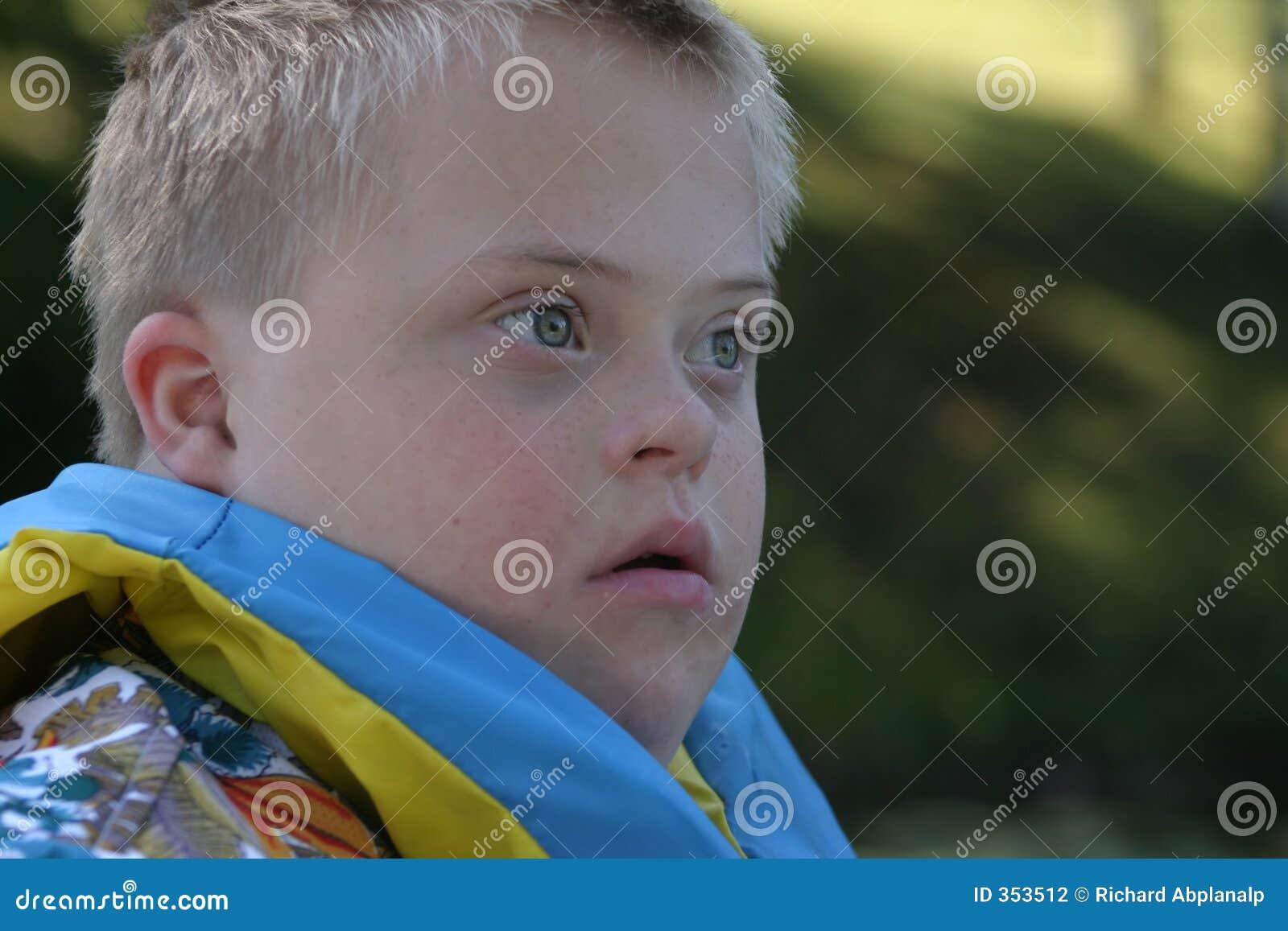 Ragazzo con Down Syndrome