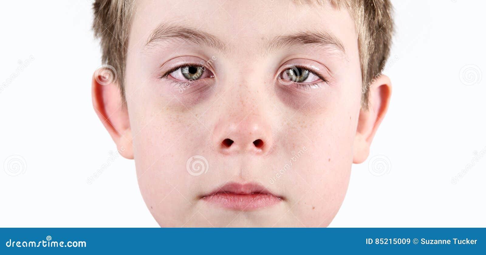 Ragazzo con i notropidi allergici
