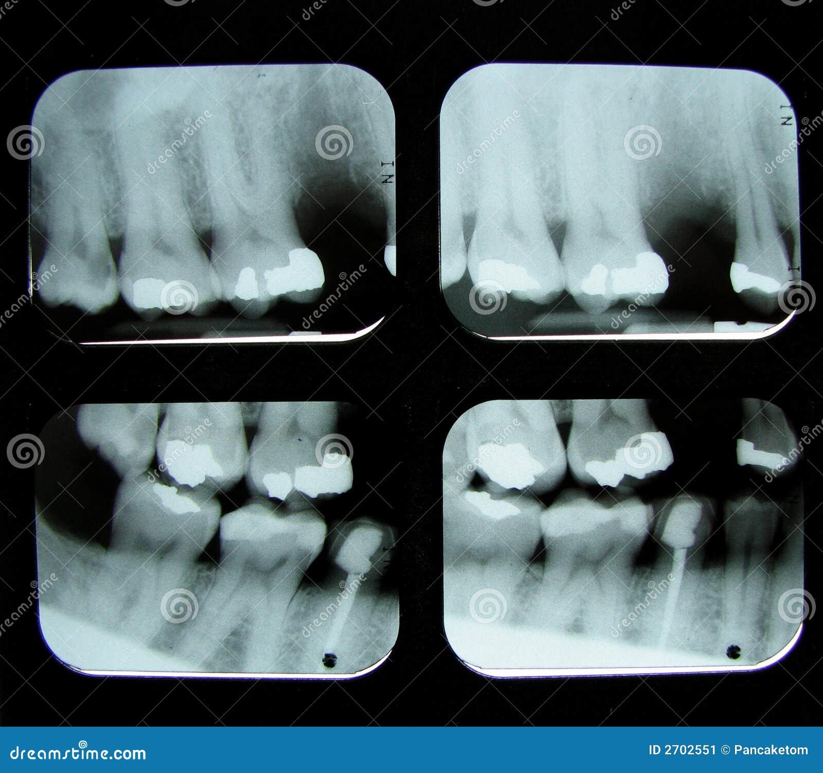 Raggi X dentali