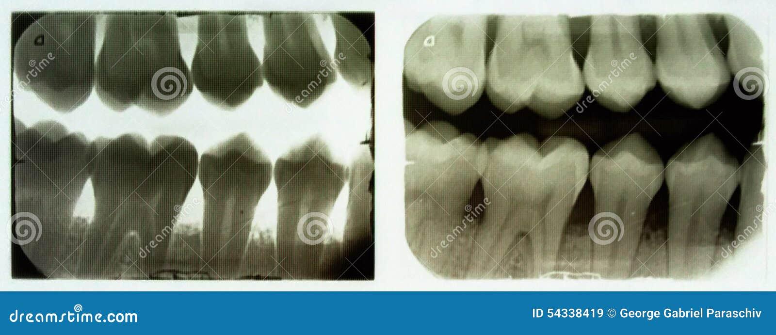 Raio X dental
