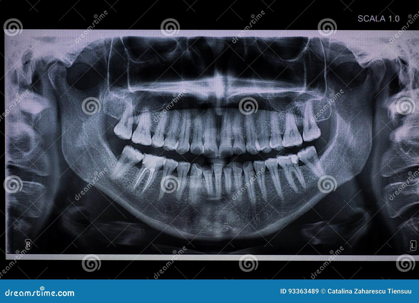 Raio X dental panorâmico com um canal de raiz