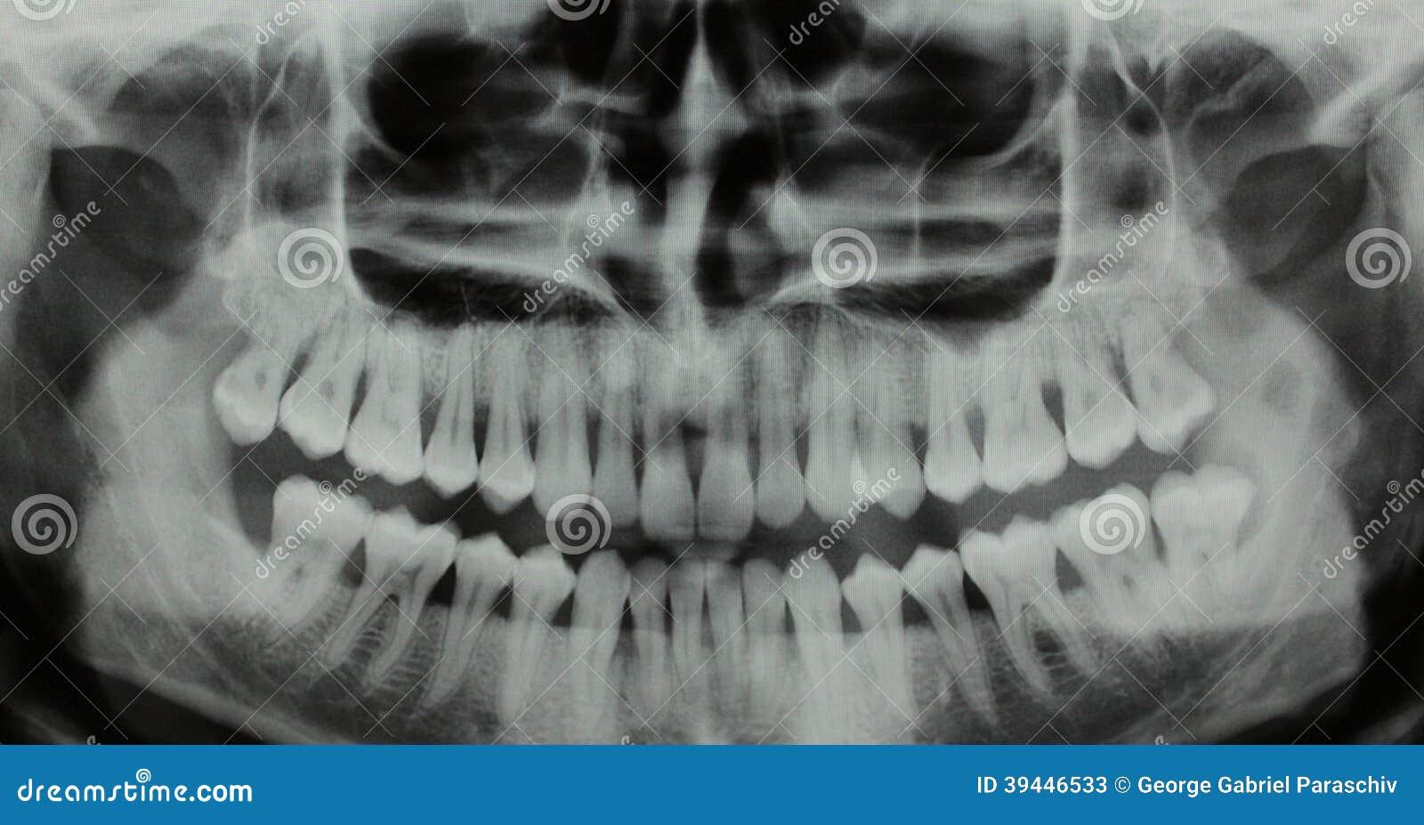Raio X dental panorâmico - uma falta dos dentes de sabedoria