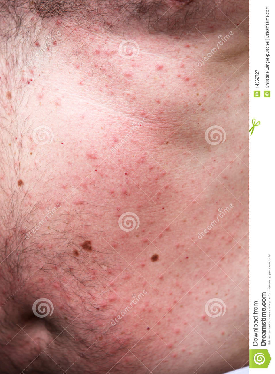 Rash or sun allergy stock image  Image of close, pain - 14962727