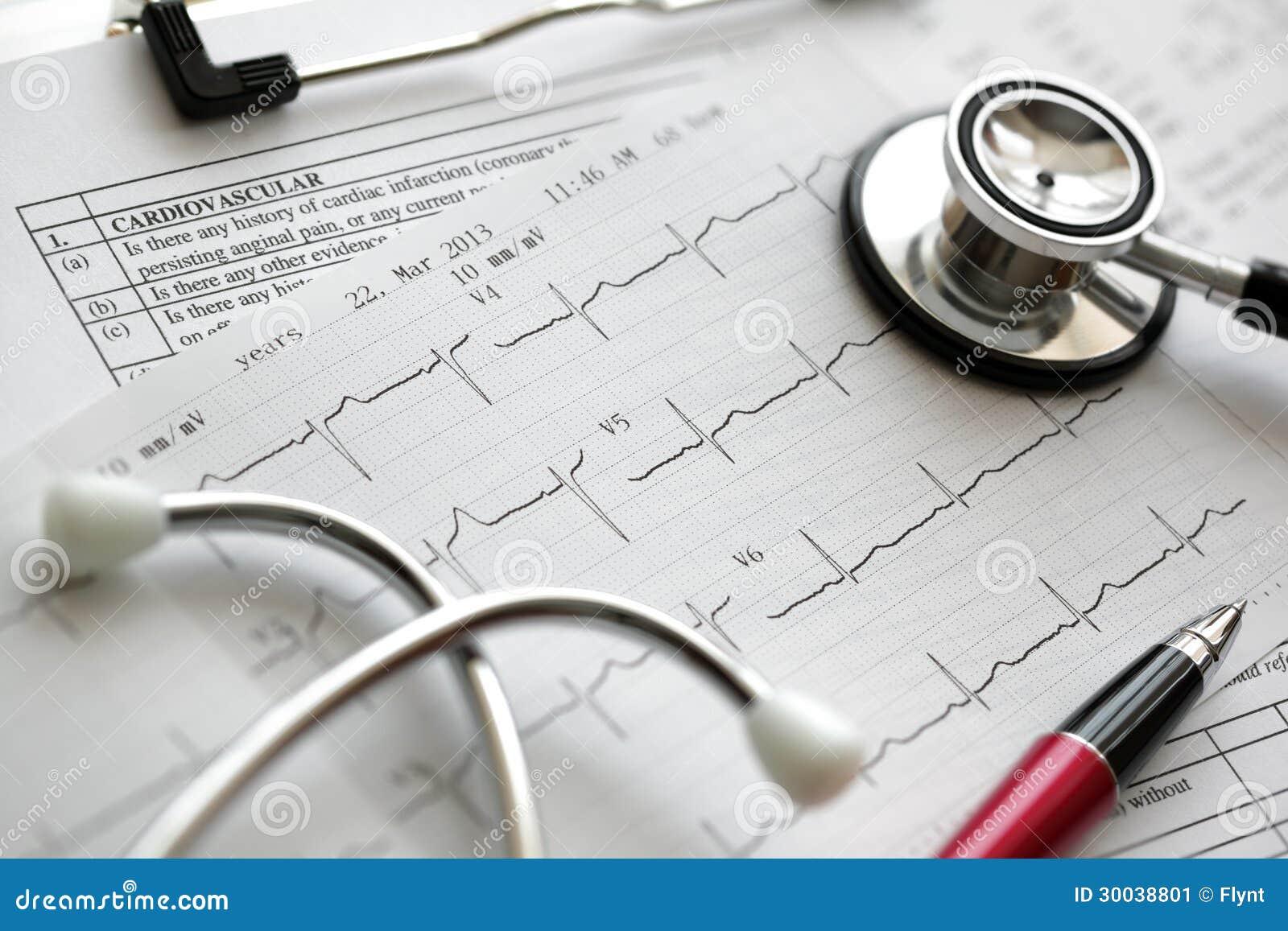 Cardiograma y estetoscopio