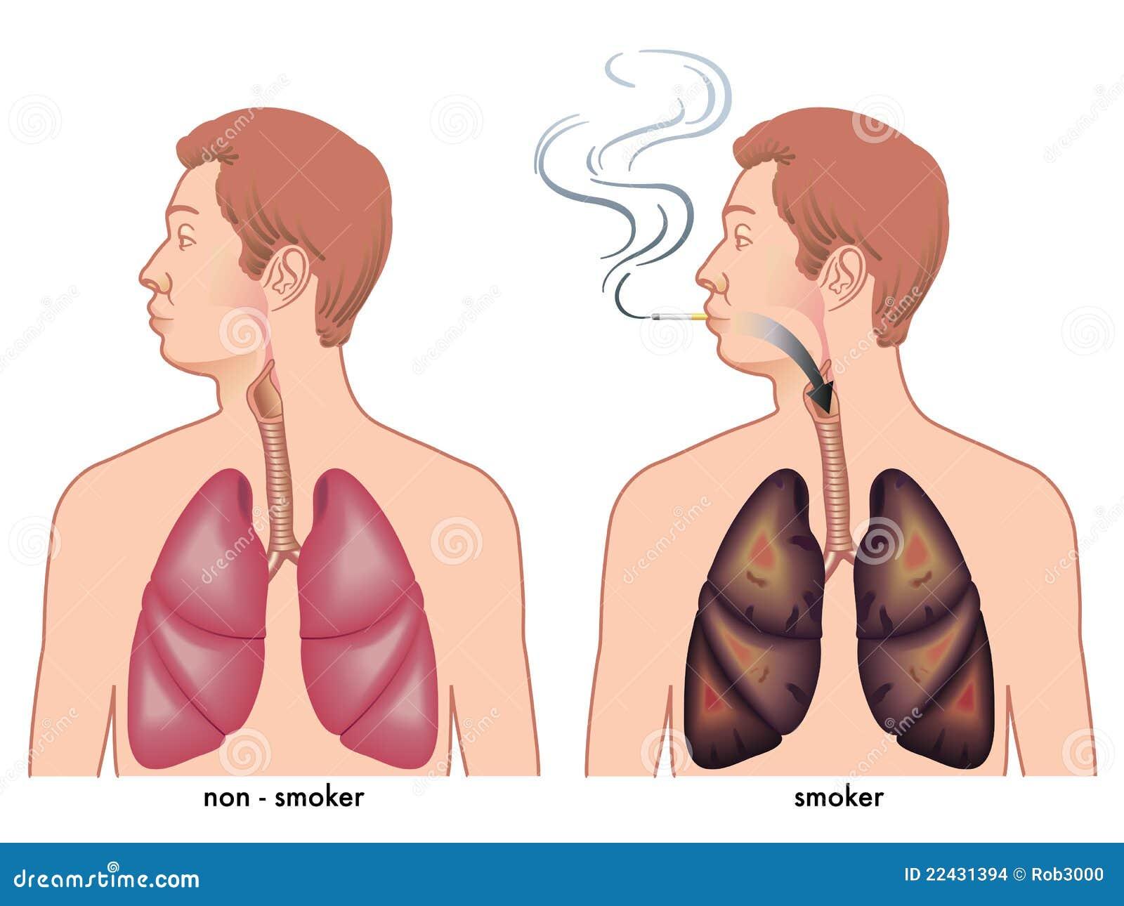 Der Artikel die leichte Weise, die Methode allena karra Rauchen aufzugeben