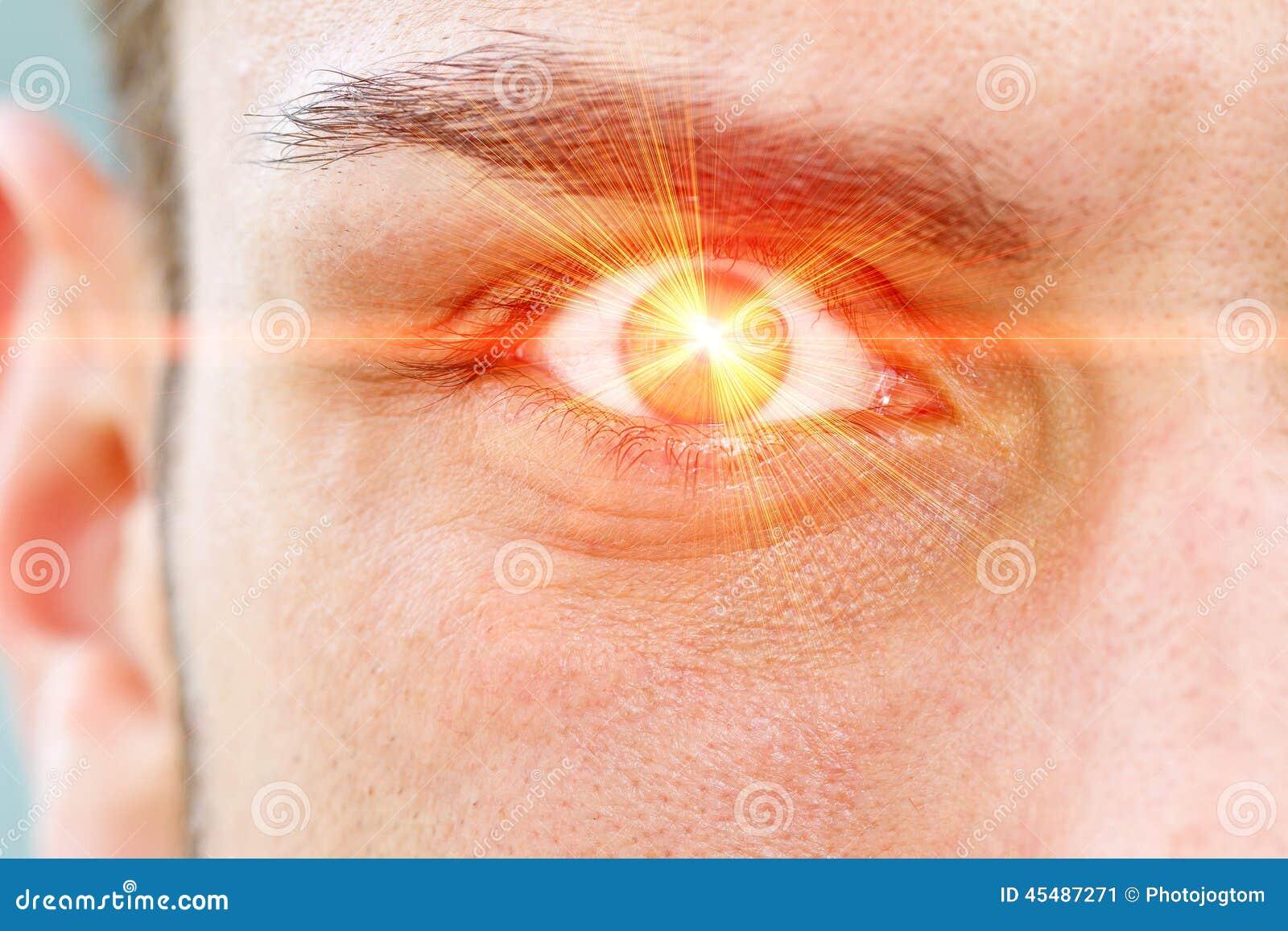 Rayo del laser en ojo