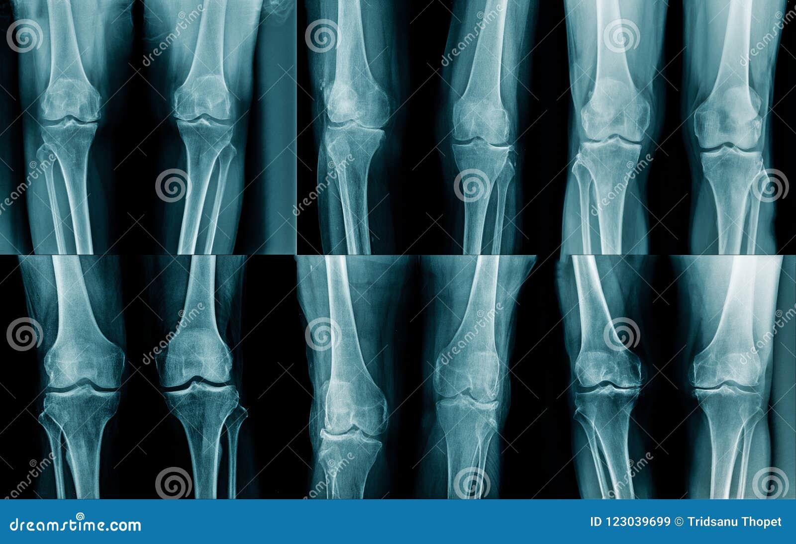 Rayon X de jambe de collection