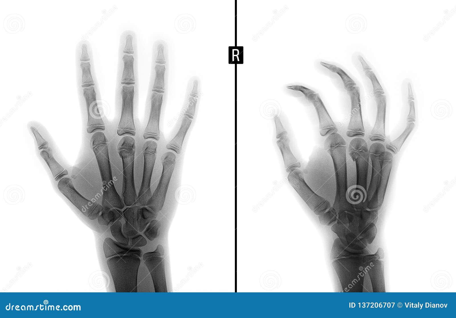 Rayon X de la main Fracture du 3ème os metacarpal l enfant Négatif