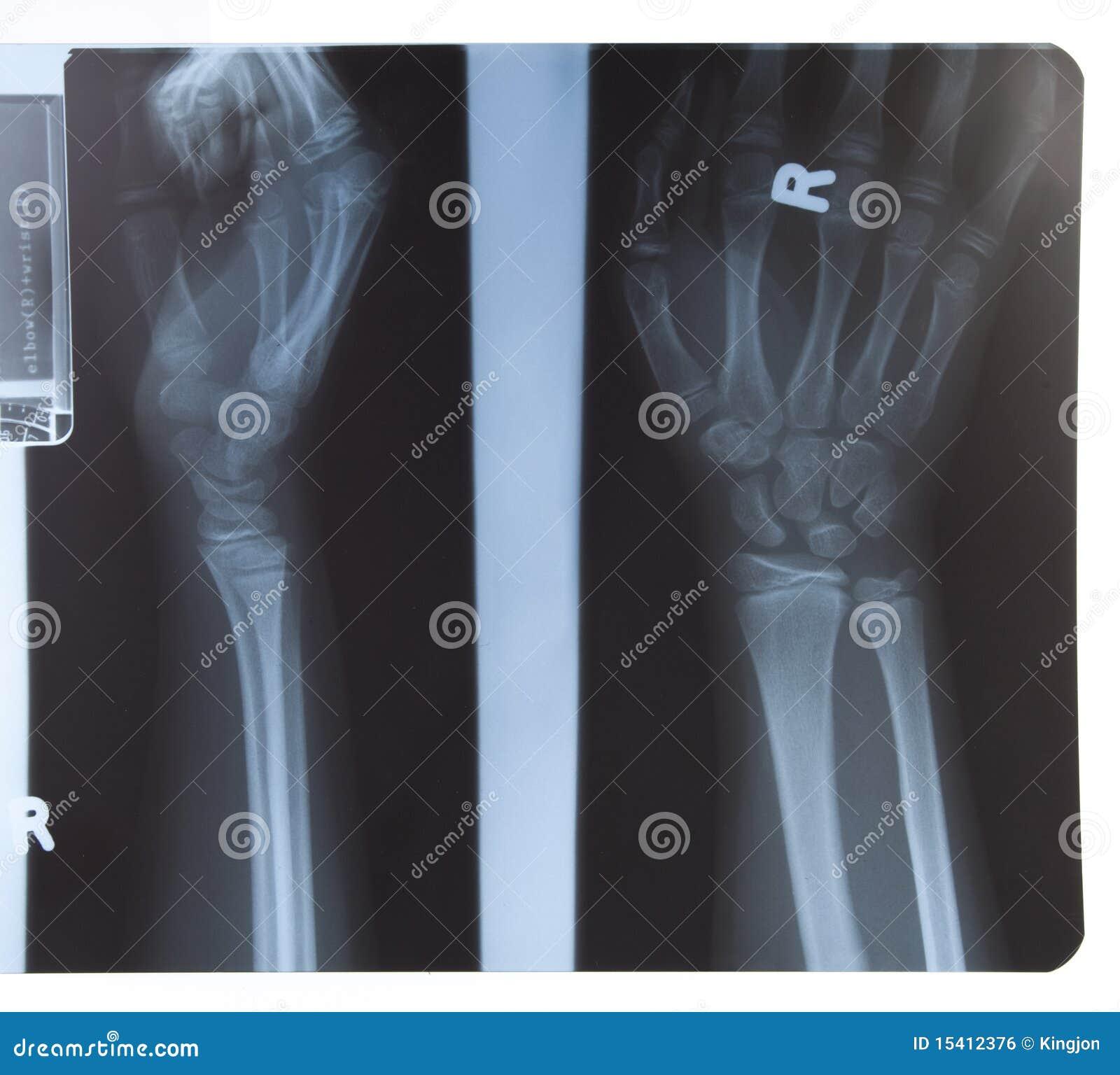 Rayon X de main et d avant-bras