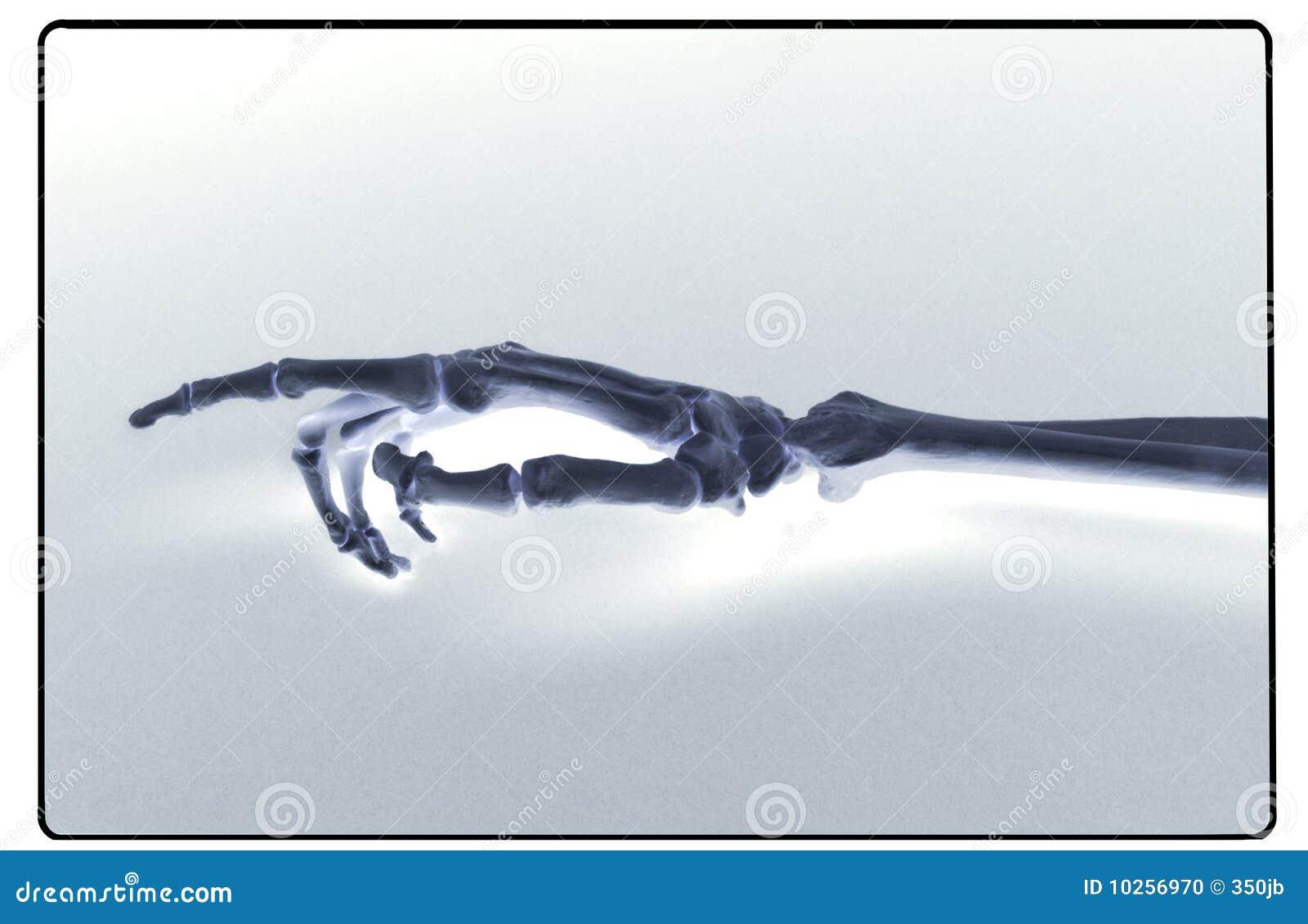 Rayon X de main et d avant-bras humains