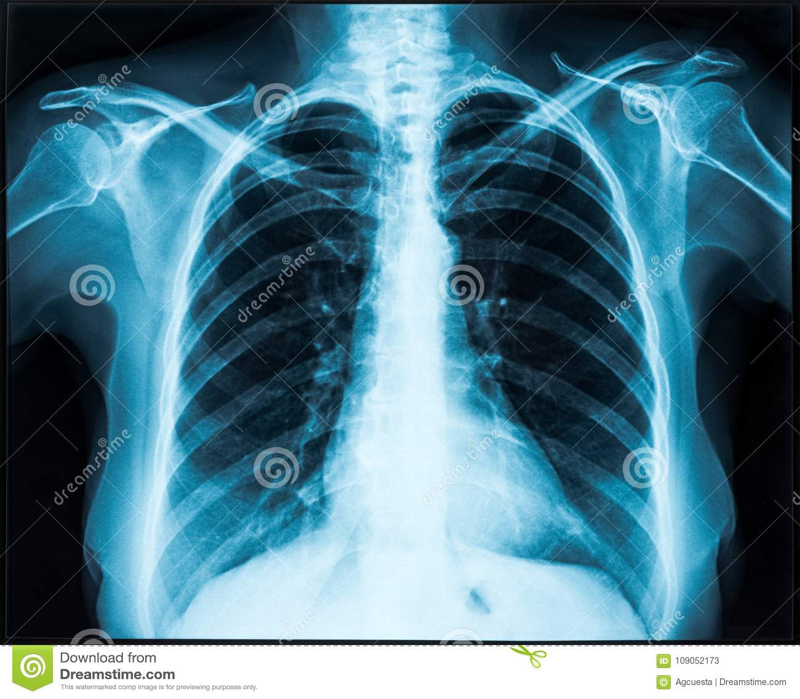 Rayon X de thorax