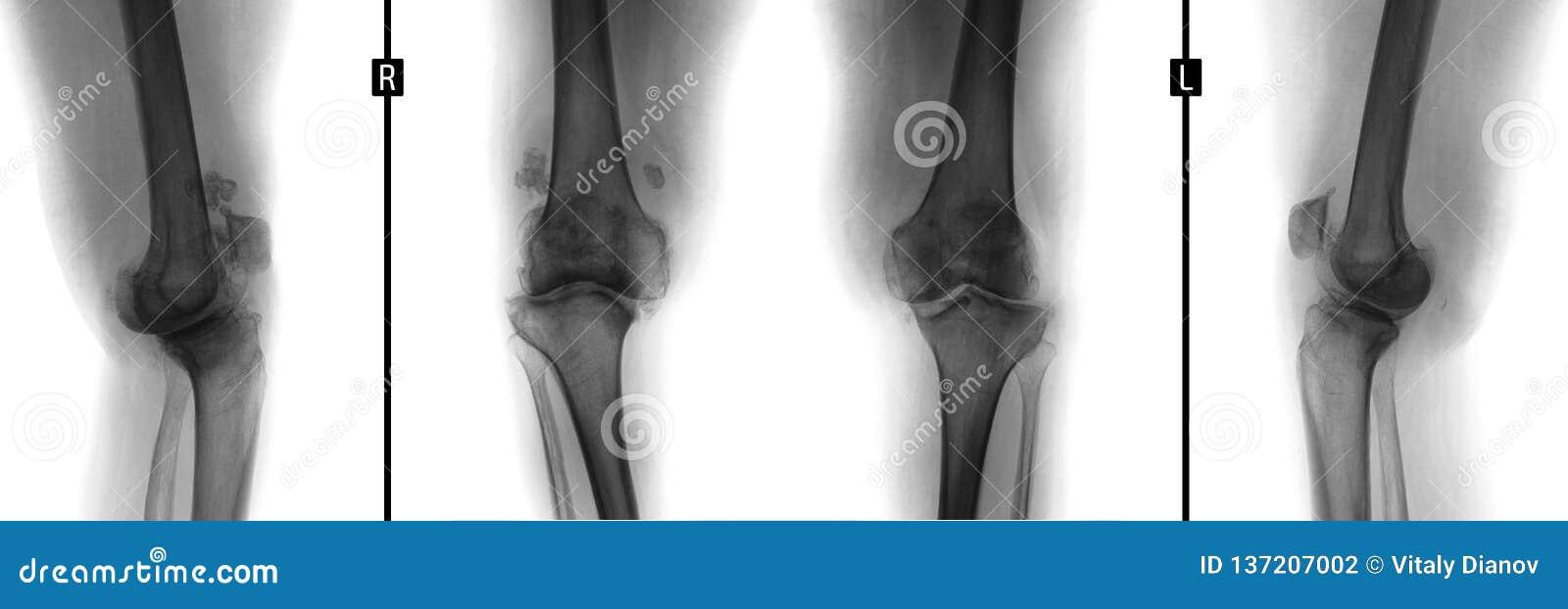 Rayon X des articulations du genou Déformer l arthrose Négatif