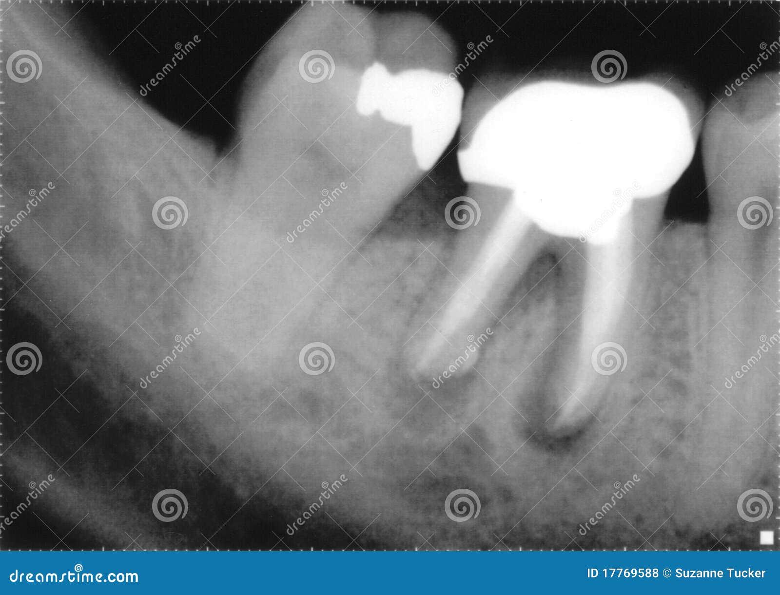 Rayon X des molaires