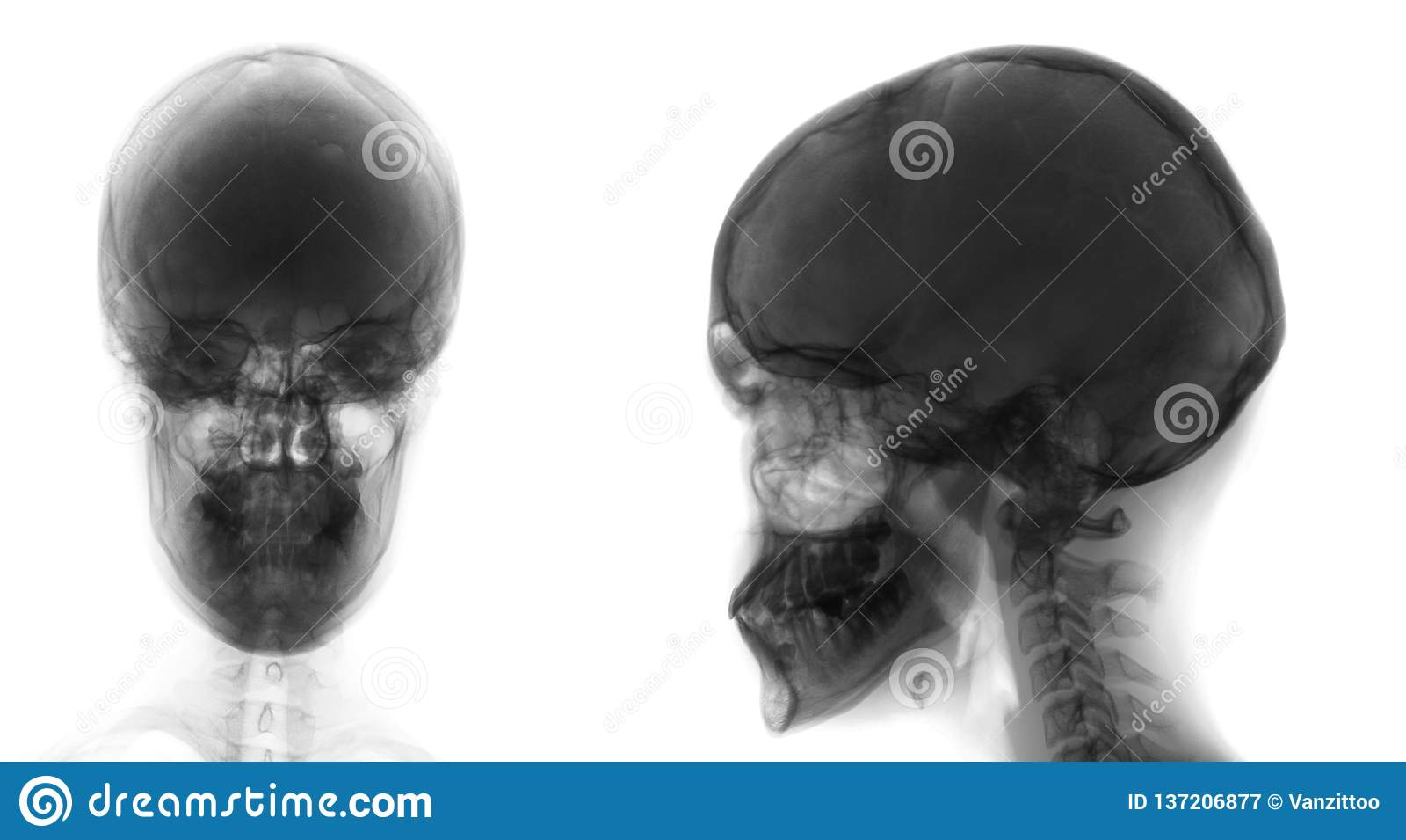 Rayon X du crâne Ostéoïde-osteoma du sinus frontal Négatif