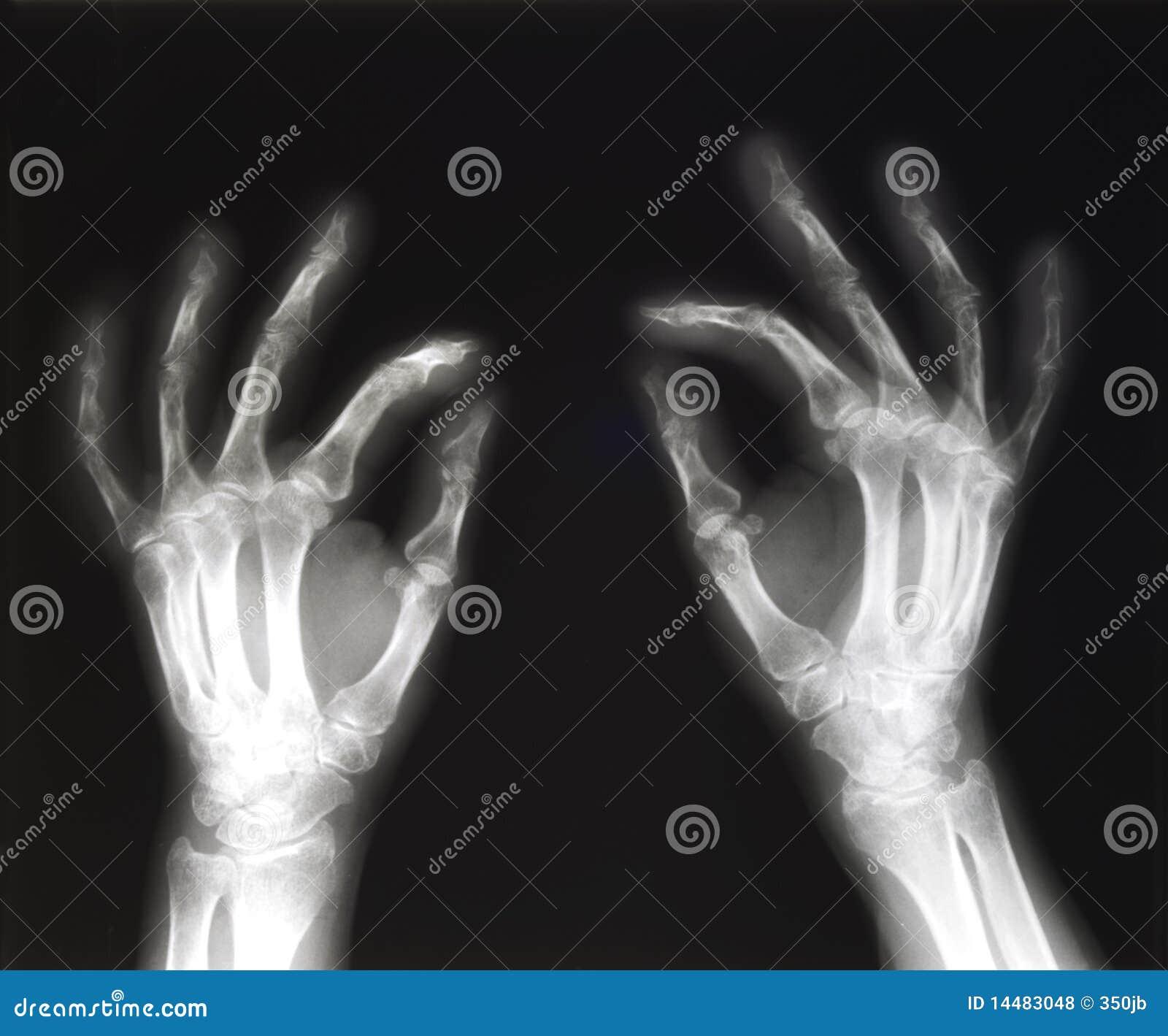 Rayon X du pincement de mains