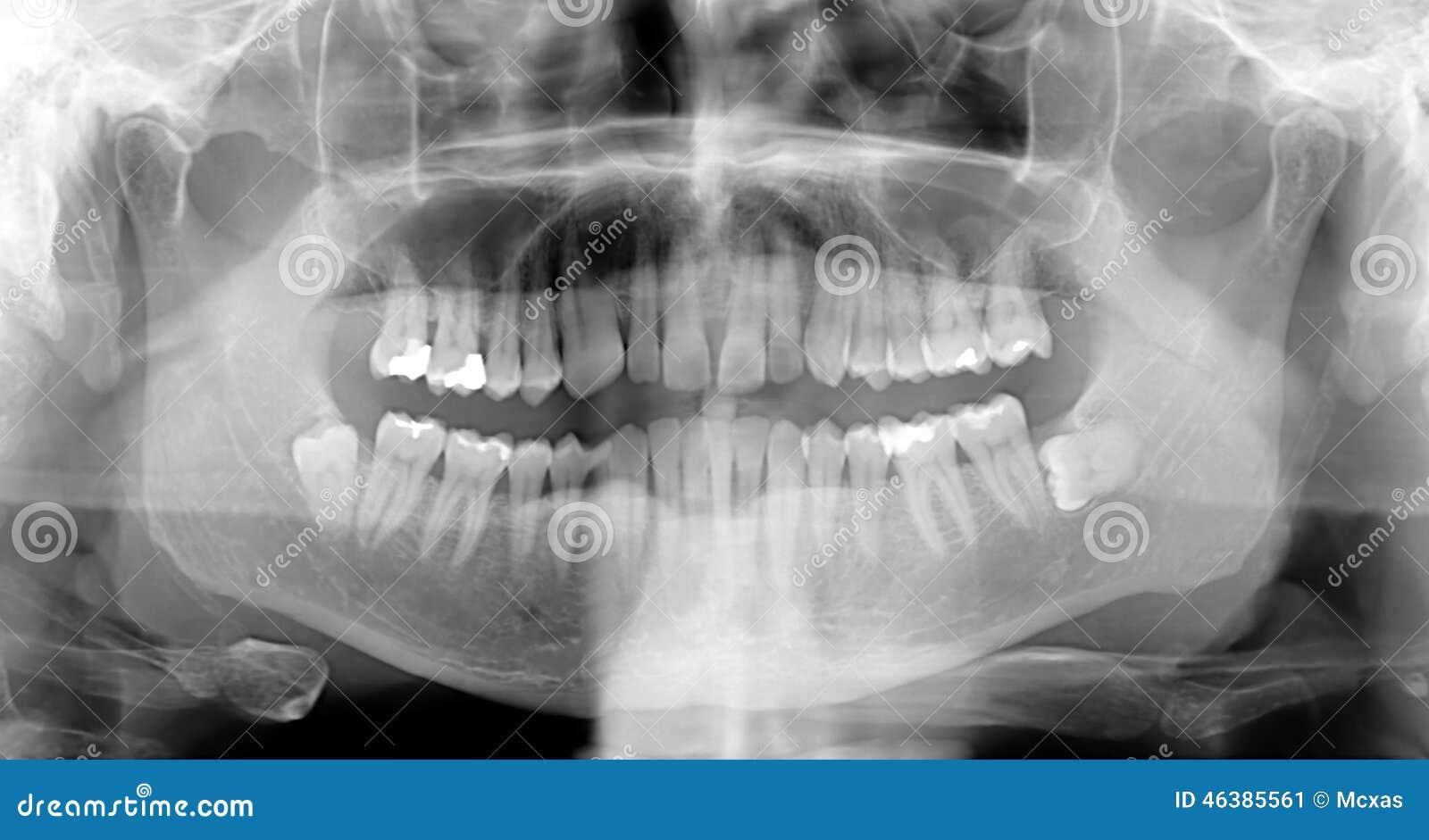 Rayos de X dentales imagen de archivo. Imagen de dentista - 46385561
