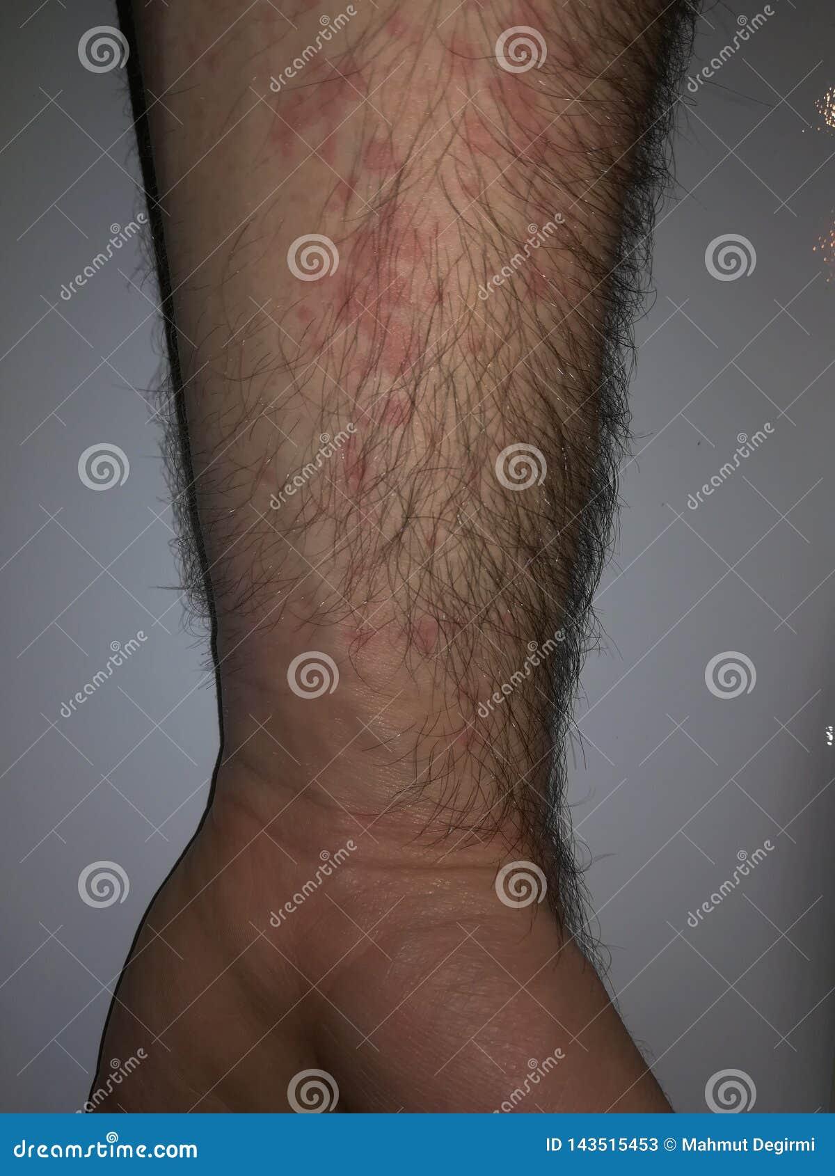 Reakcja ręka alergia