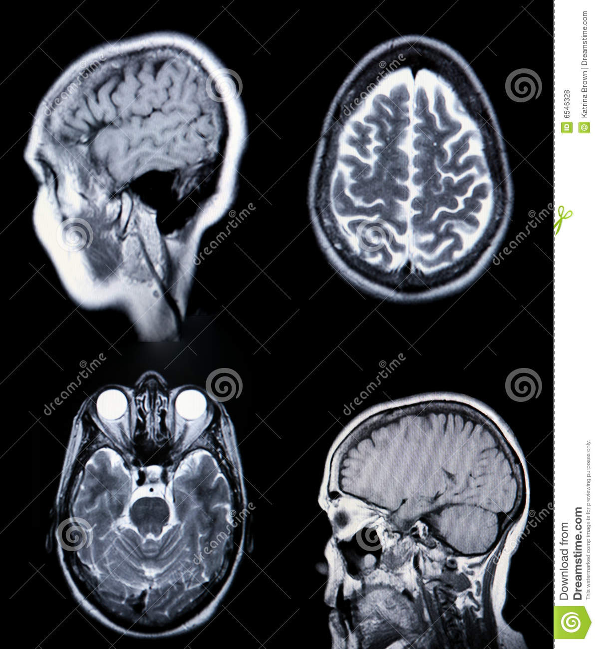 A Real MRI/ MRA (Magnetic Resonance Angiogram) Of Stock Photo ...