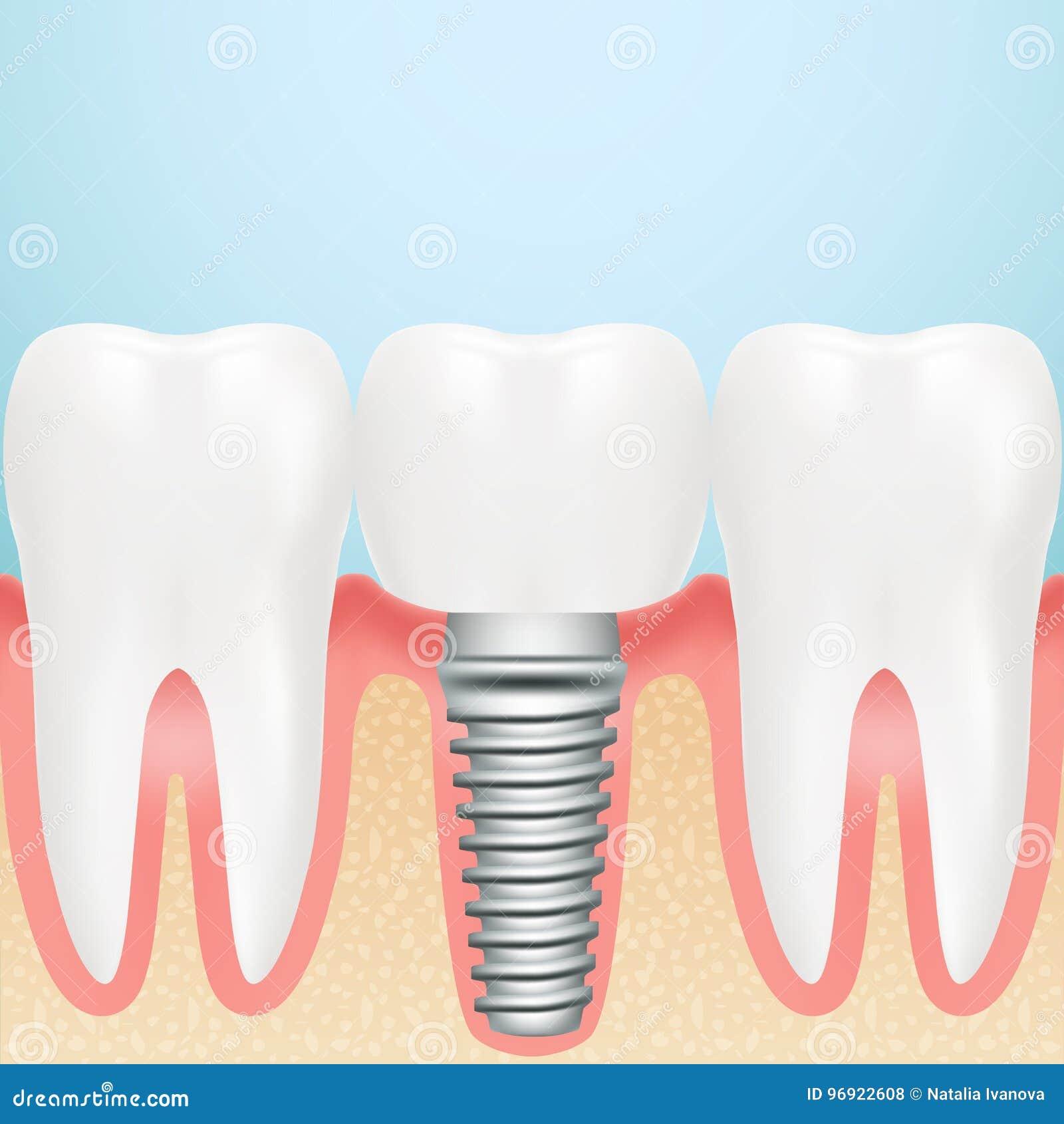 Realistic Dental Implant. Installation Of Dental Implant ... Dental Implant Background