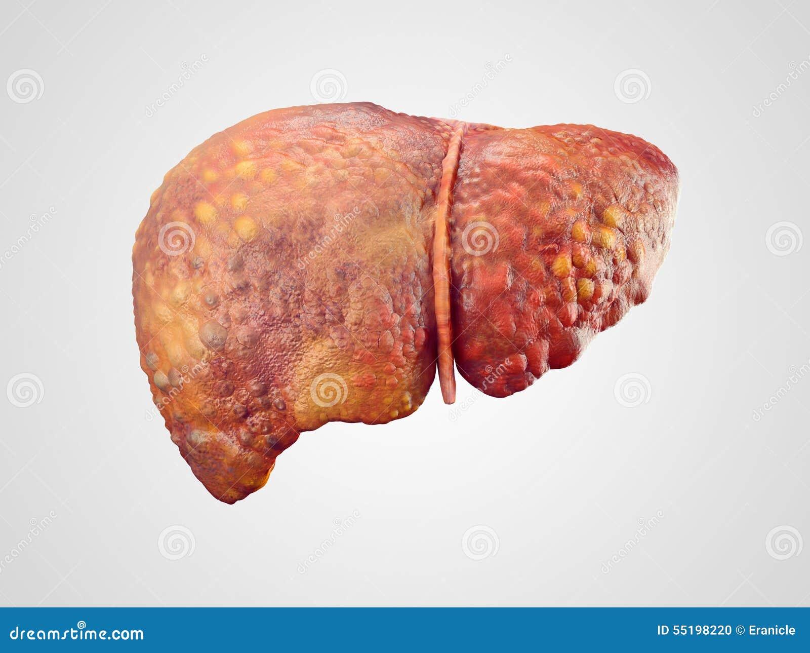 Realistic Illustration Of Cirrhosis Of Human Liver Stock ...