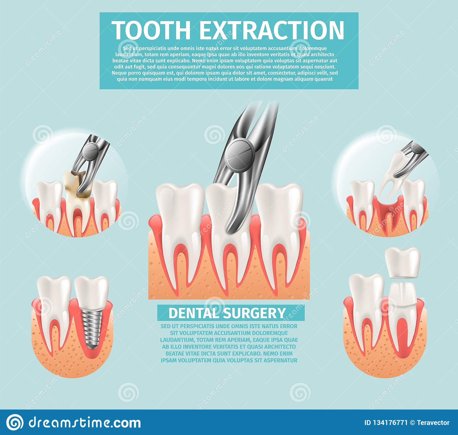 Realistic Illustration Tooth Extraction Vector 3d Stock