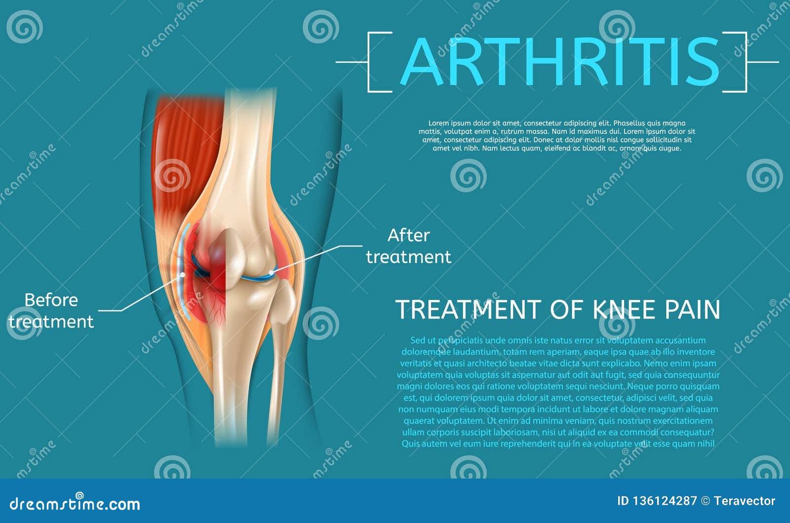 Realistisk illustrationbehandling av knäet smärtar