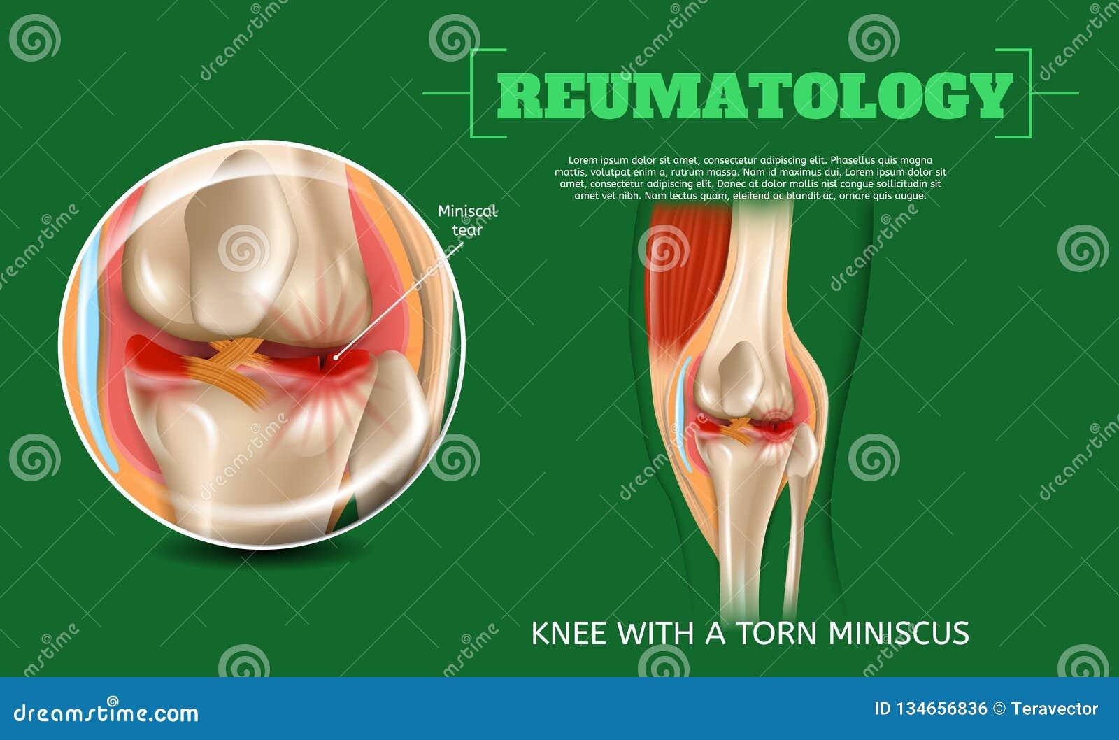Realistyczny 3d Ilustracyjny kolano z Poszarpanym Miniscus
