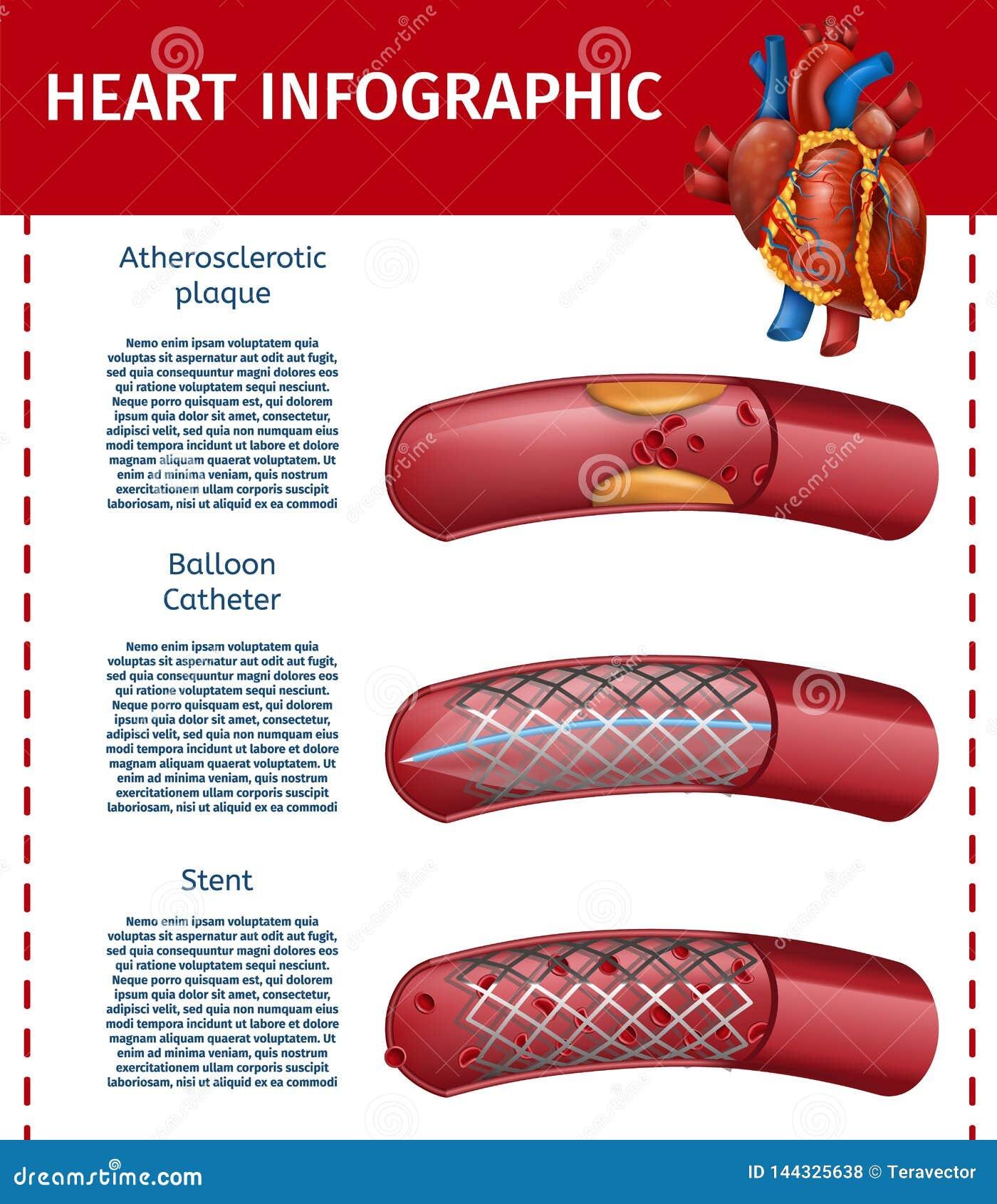Realistyczny Kierowy Infographic operacji terapii sztandar